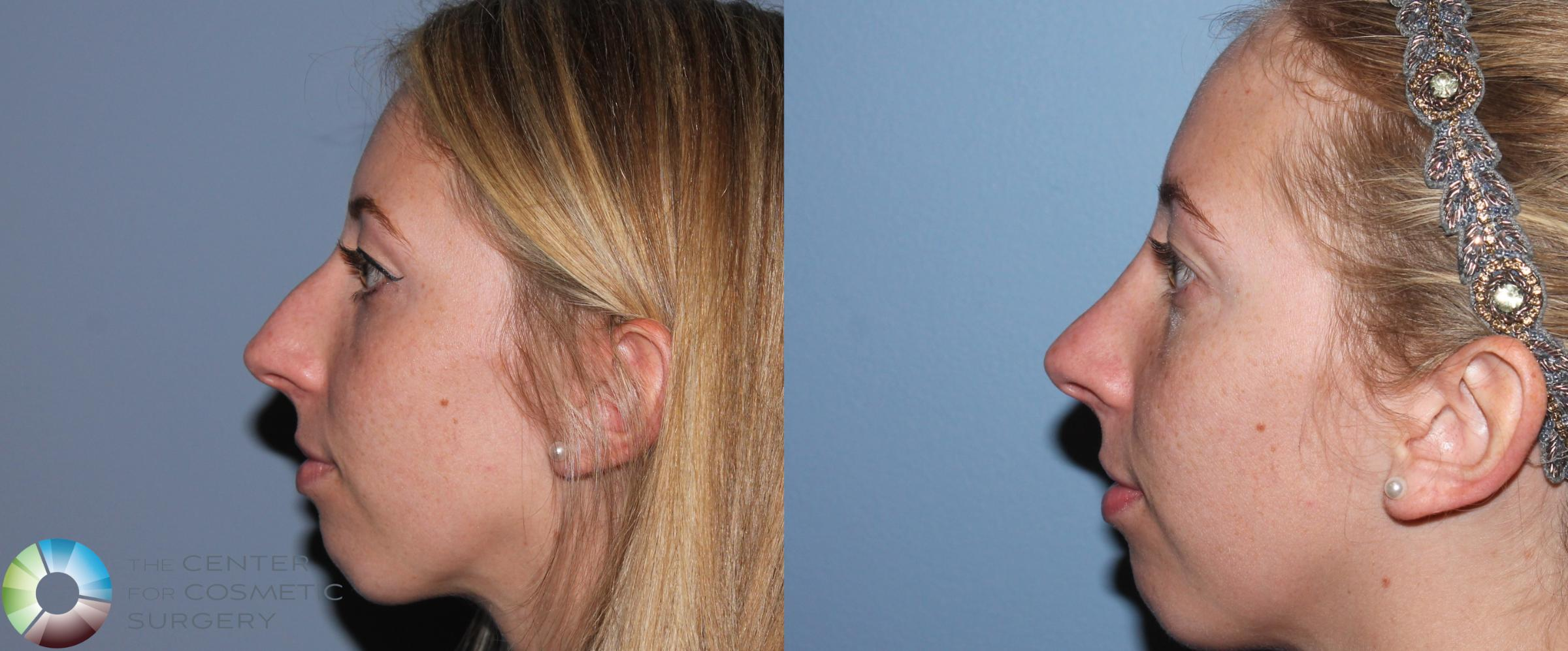 Rhinoplasty Case 788 Before & After View #1 | Golden, CO | The Center for Cosmetic Surgery