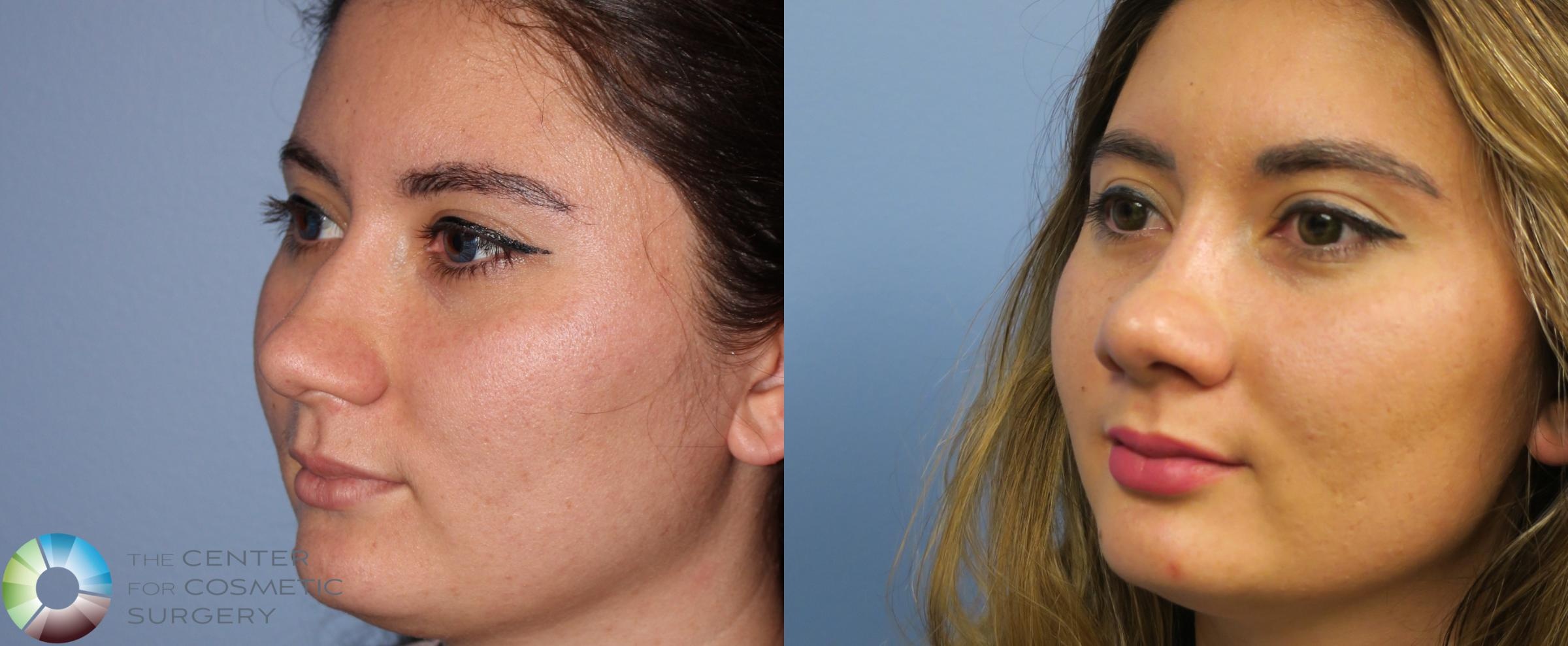 Rhinoplasty Case 820 Before & After View #2 | Golden, CO | The Center for Cosmetic Surgery