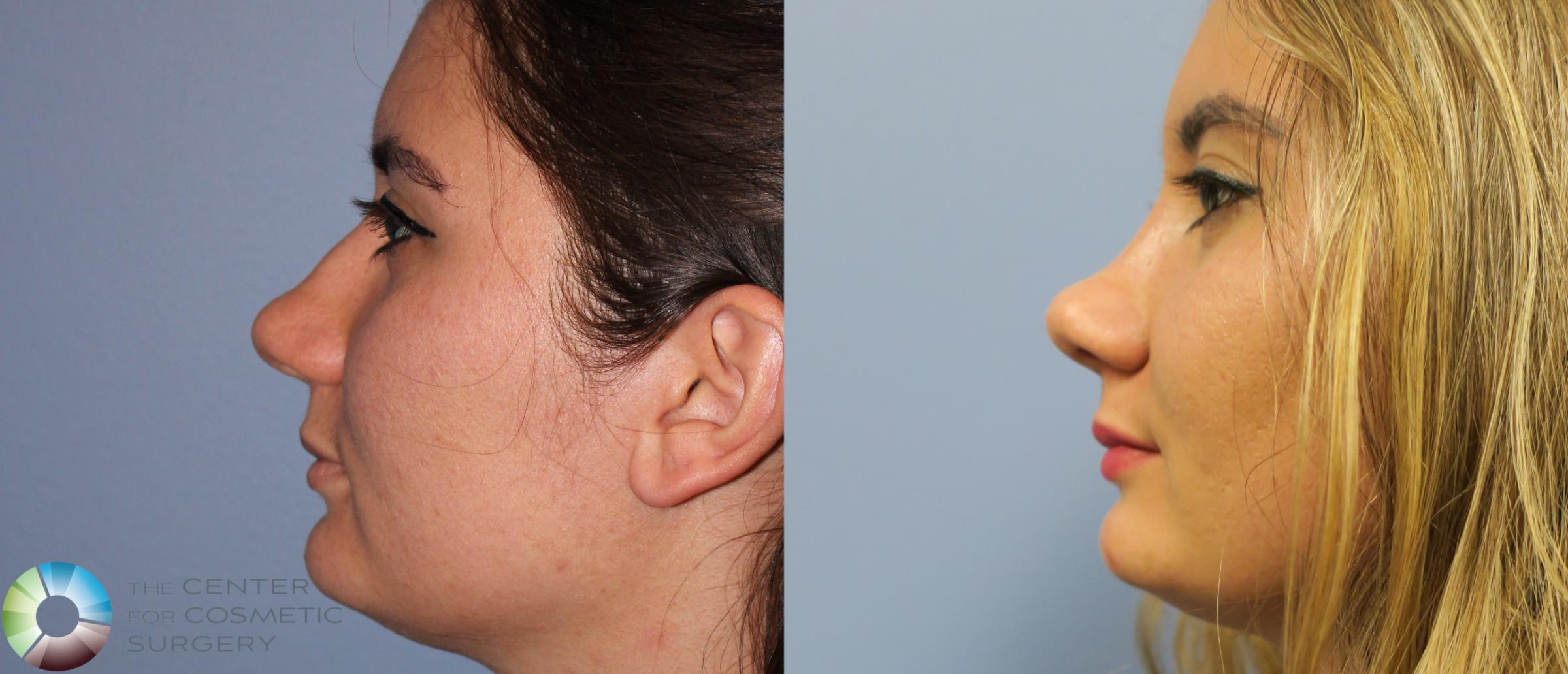 Rhinoplasty Case 820 Before & After View #3 | Golden, CO | The Center for Cosmetic Surgery