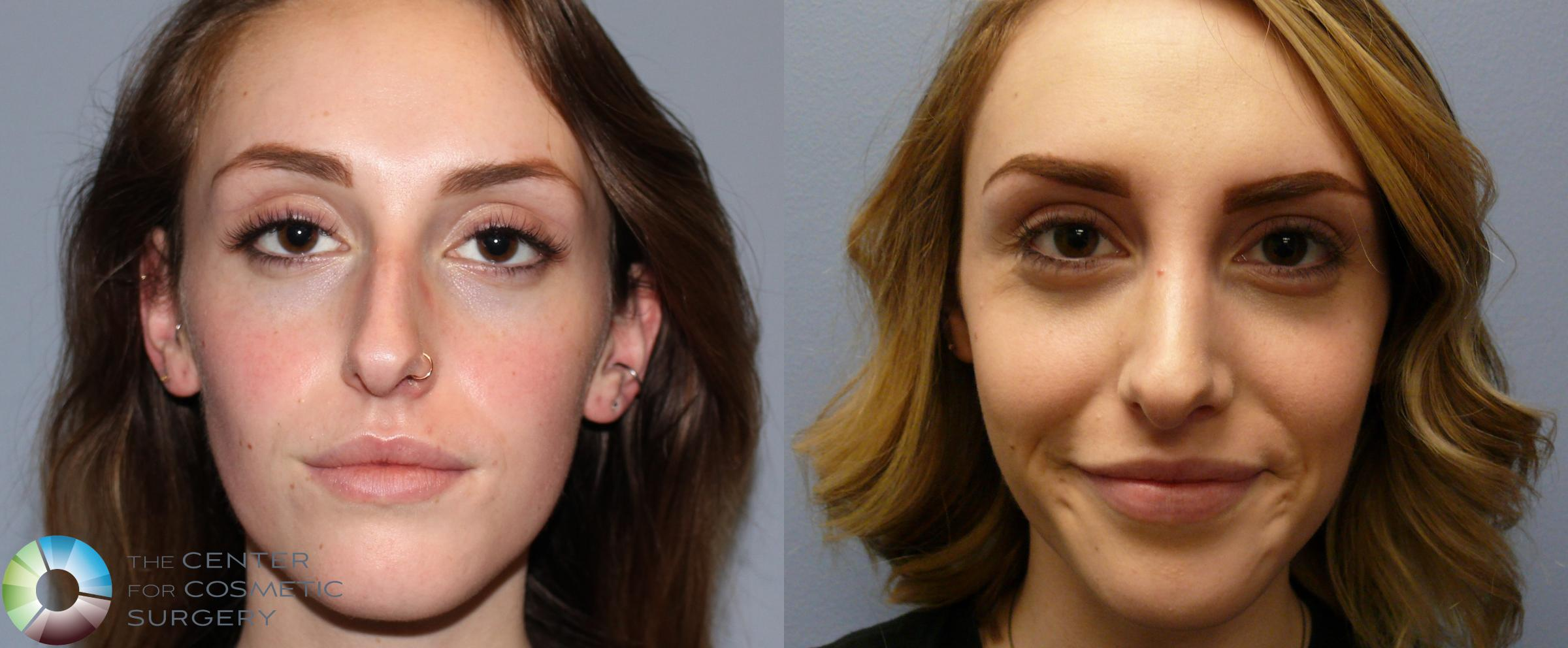 Rhinoplasty In Denver The Center For Cosmetic Surgery