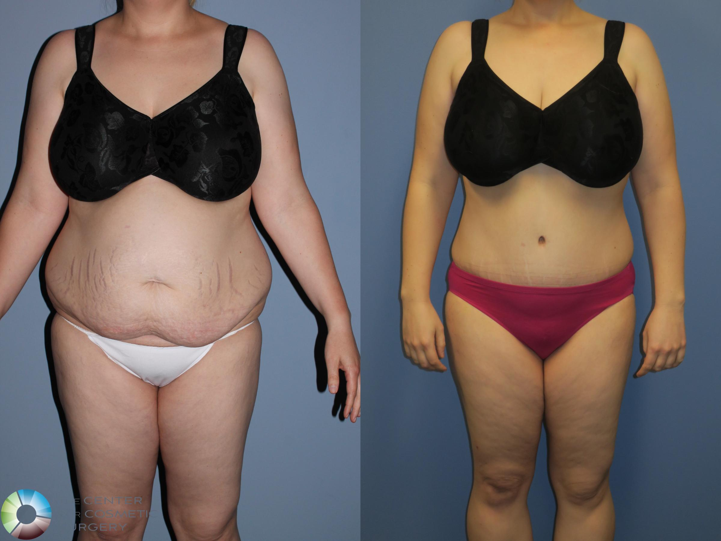Liposuction Case 11394 Before & After Front | Golden, CO | The Center for Cosmetic Surgery