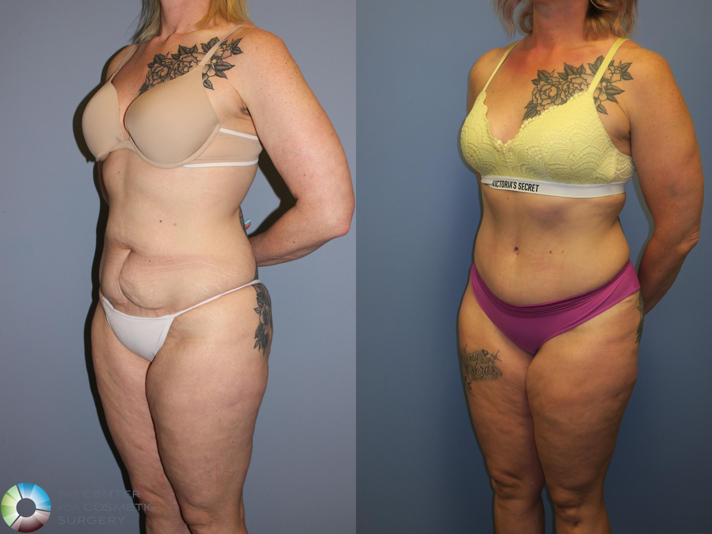 Tummy Tuck Case 11403 Before & After Left Oblique | Golden, CO | The Center for Cosmetic Surgery