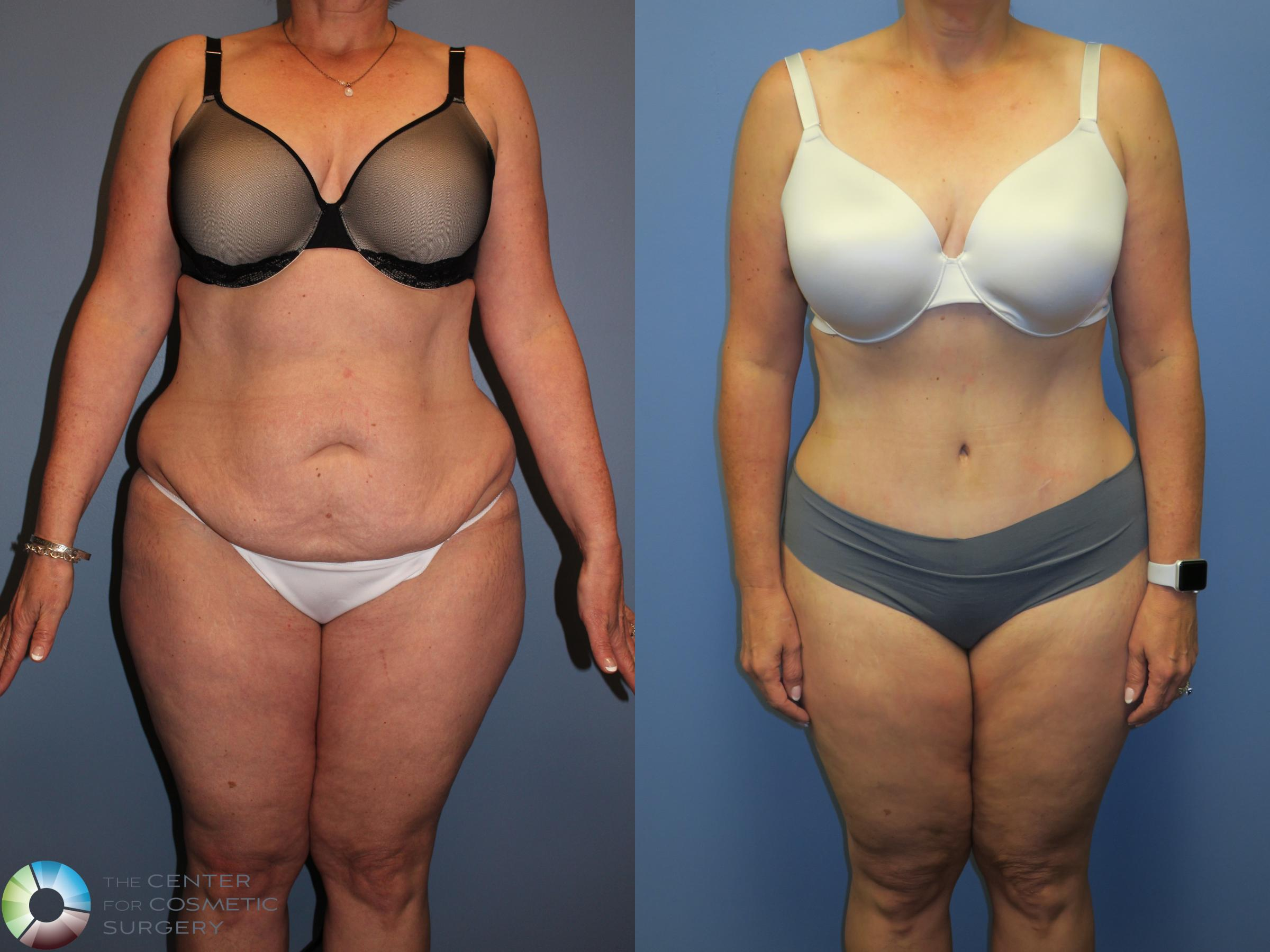 Tummy Tuck Abdominoplasty For Denver Colorado Springs The Center For Cosmetic Surgery