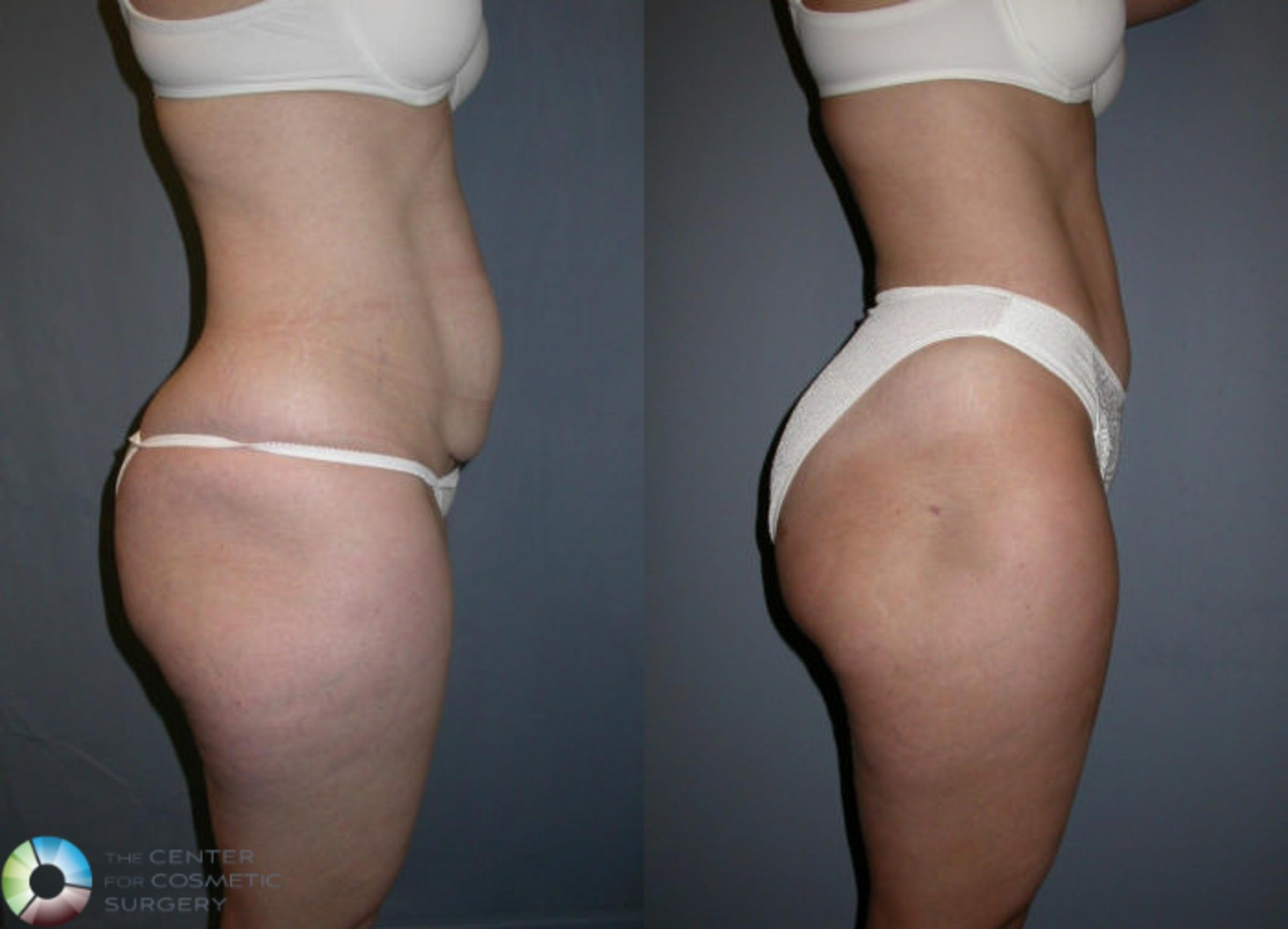 Tummy Tuck Case 16 Before & After View #3 | Golden, CO | The Center for Cosmetic Surgery