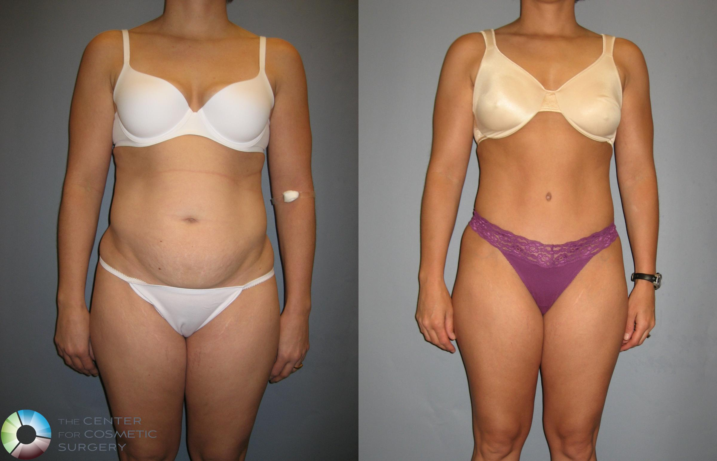 Tummy Tuck Case 190 Before & After View #1 | Golden, CO | The Center for Cosmetic Surgery
