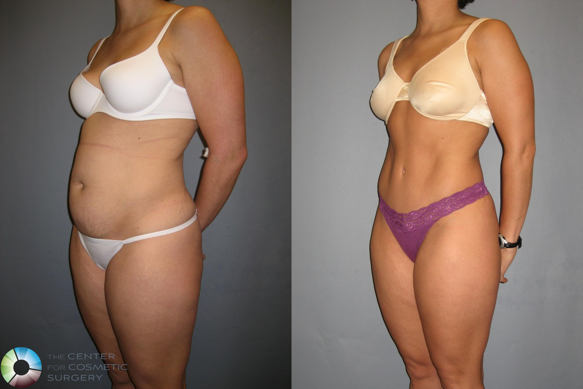 Tummy Tuck Case 190 Before & After View #2 | Golden, CO | The Center for Cosmetic Surgery