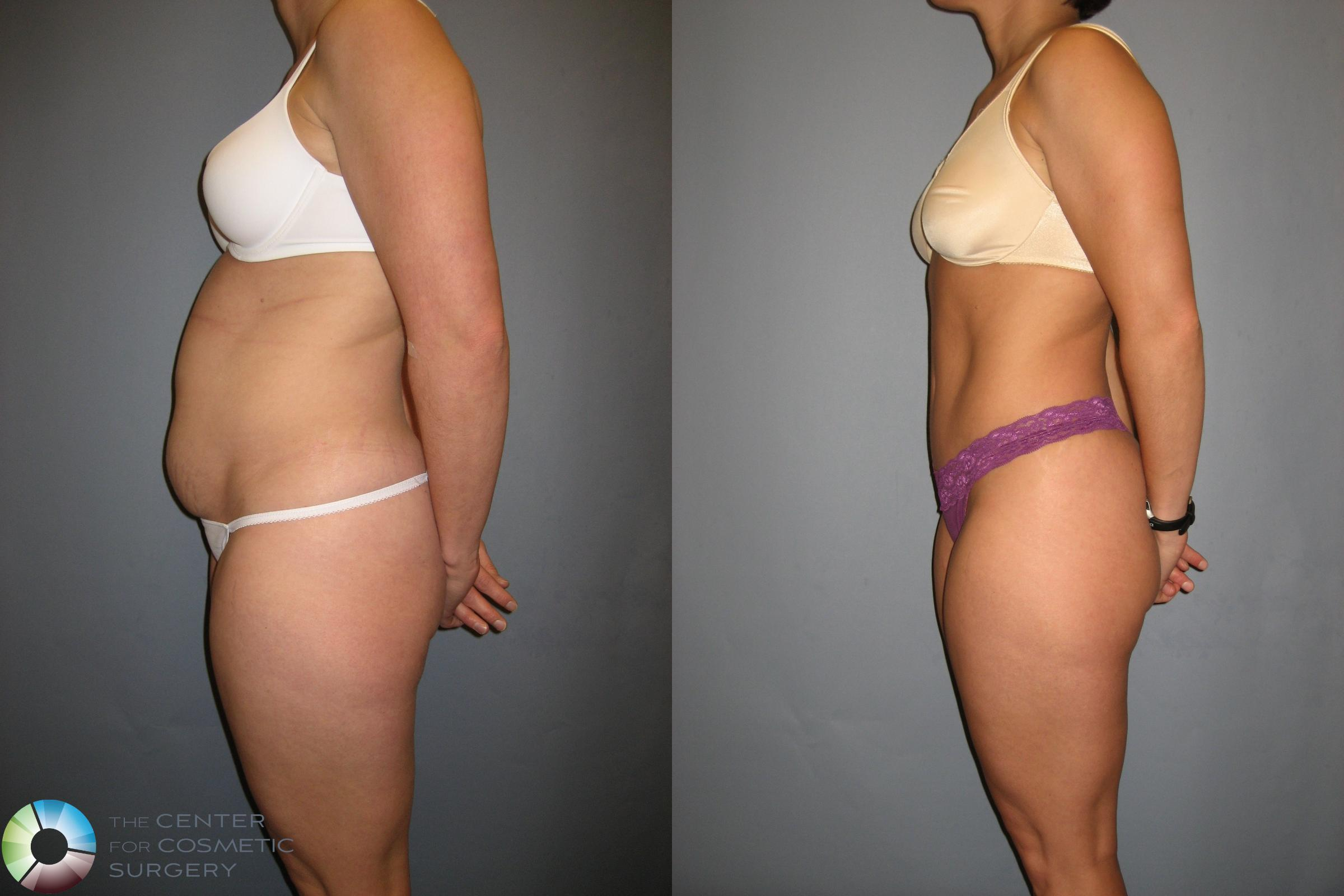 Tummy Tuck Case 190 Before & After View #3 | Golden, CO | The Center for Cosmetic Surgery