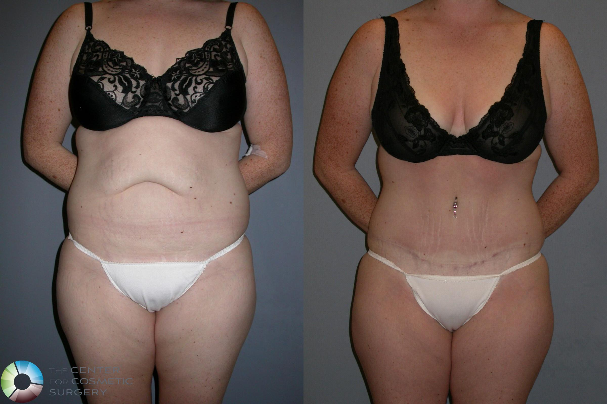 Tummy Tuck Case 191 Before & After View #1 | Golden, CO | The Center for Cosmetic Surgery