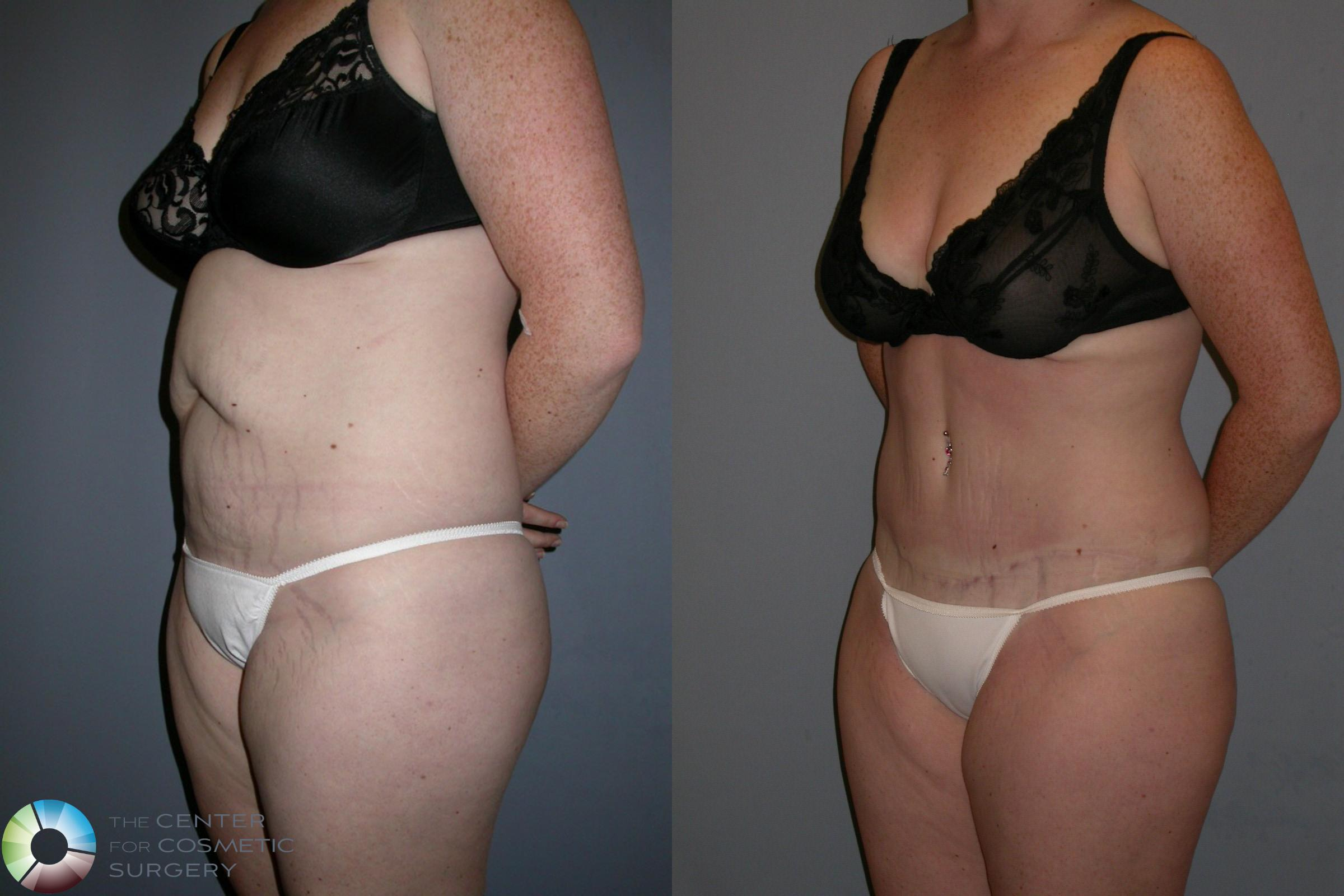 Tummy Tuck Case 191 Before & After View #2 | Golden, CO | The Center for Cosmetic Surgery