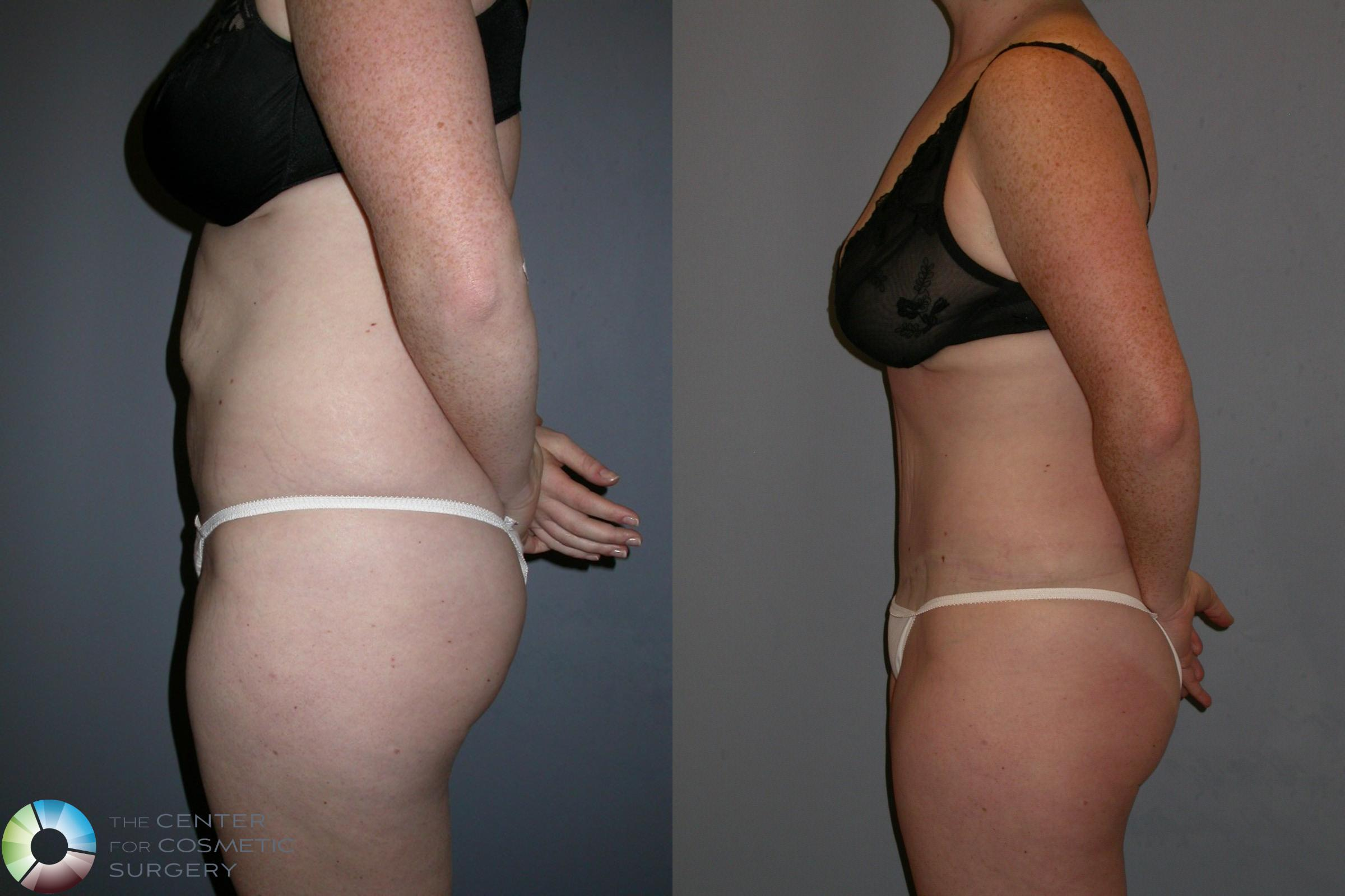 Tummy Tuck Case 191 Before & After View #3 | Golden, CO | The Center for Cosmetic Surgery