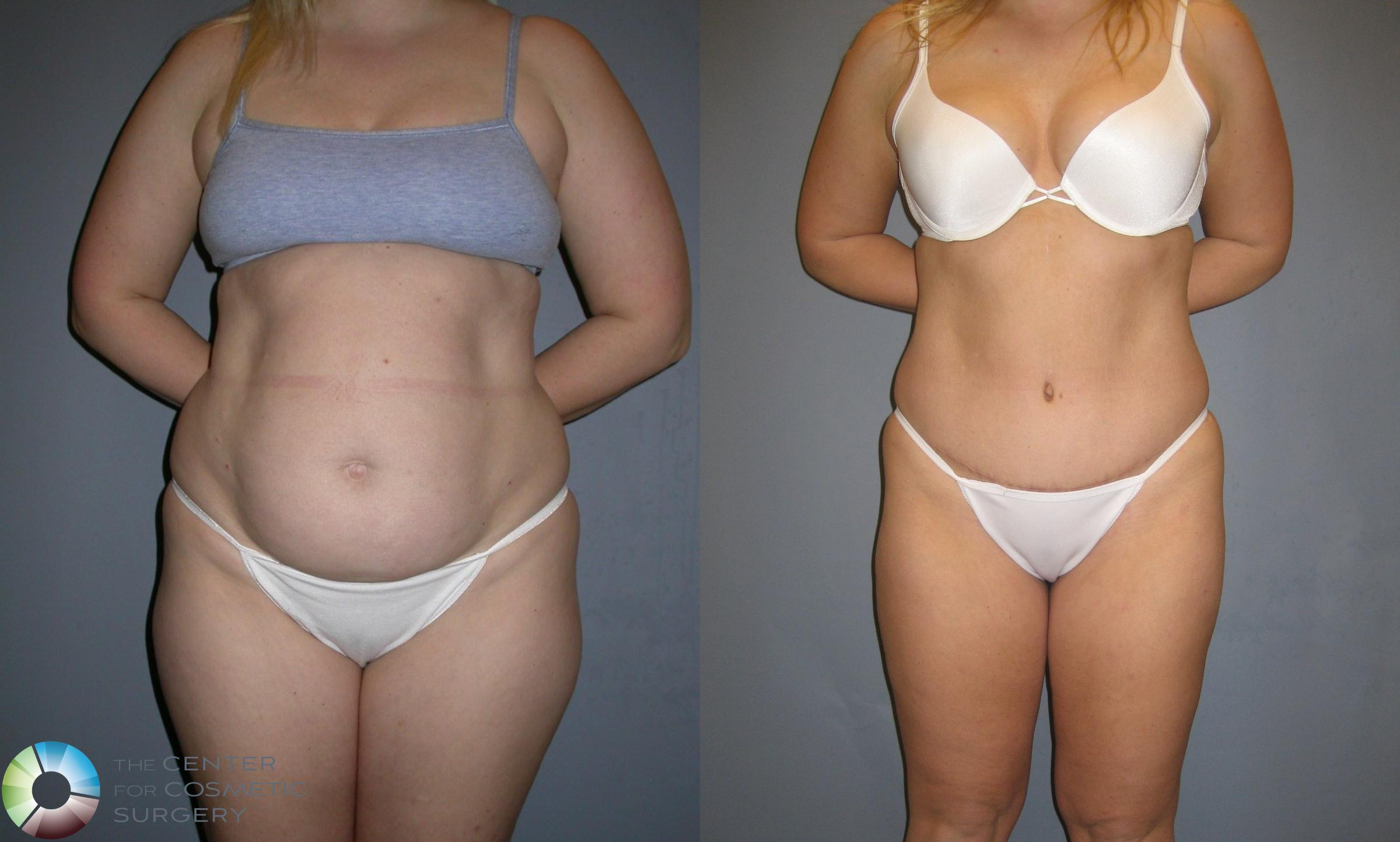 Liposuction Case 192 Before & After View #1 | Golden, CO | The Center for Cosmetic Surgery