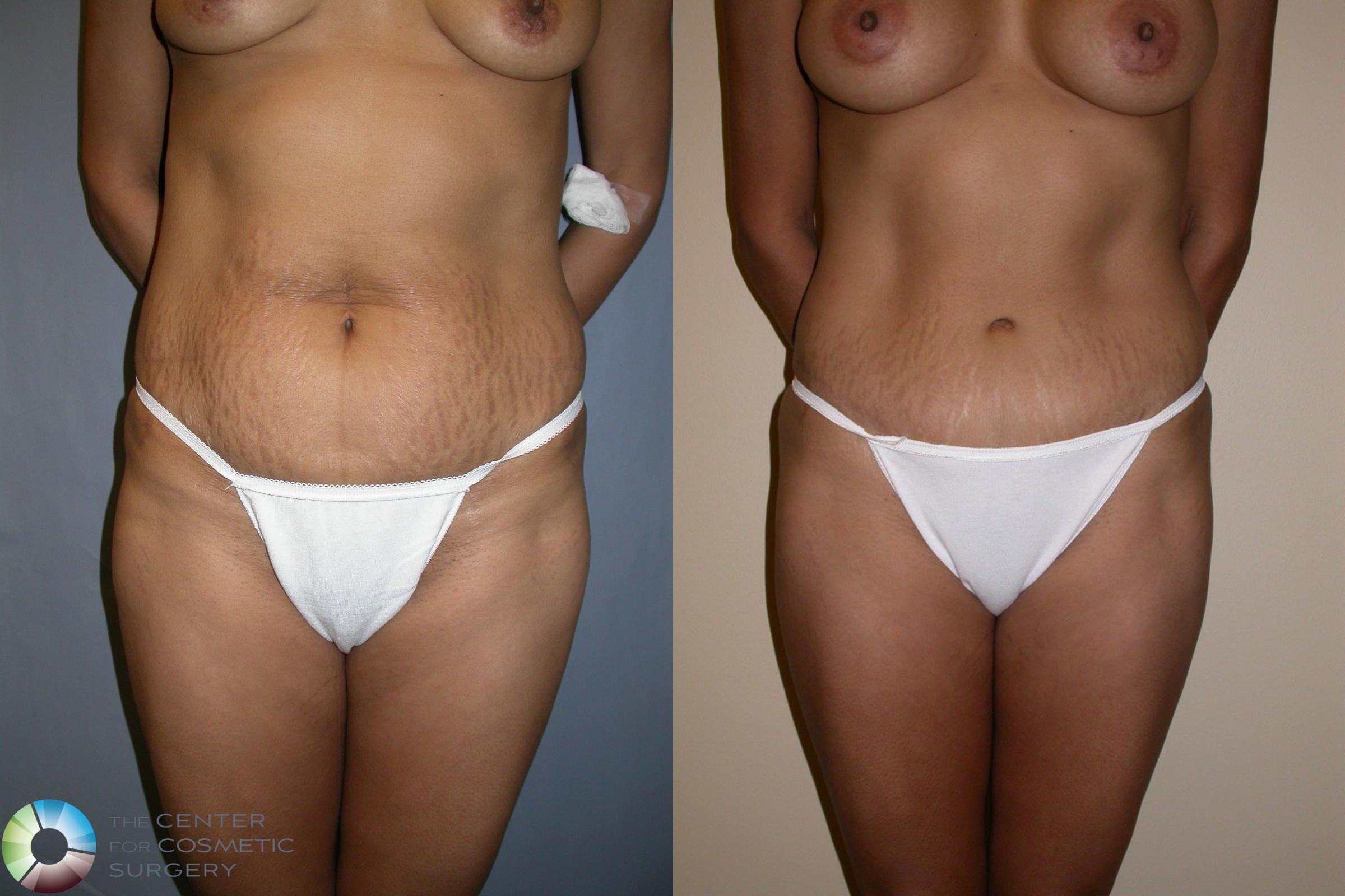 Tummy Tuck Case 195 Before & After View #1 | Golden, CO | The Center for Cosmetic Surgery