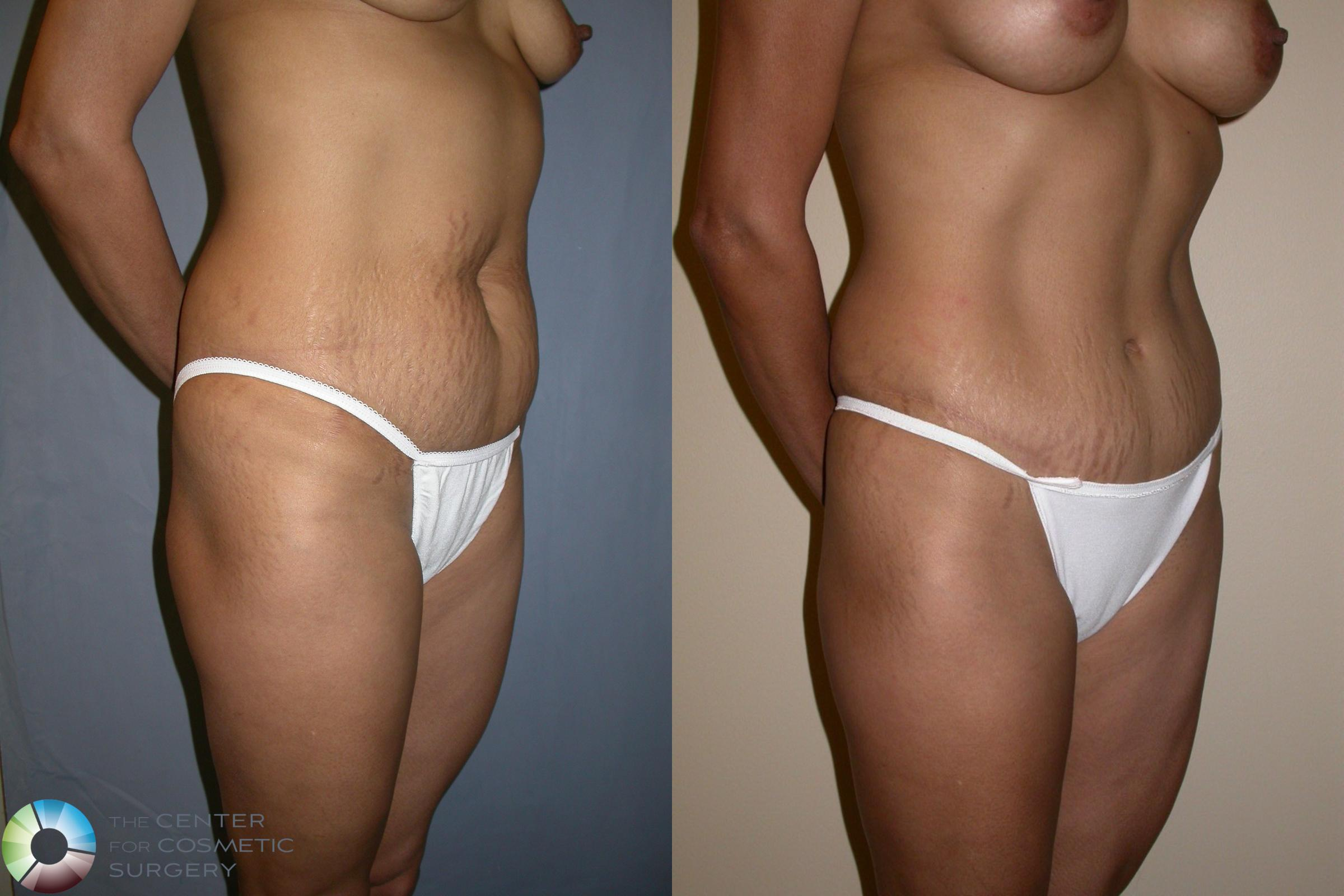 Tummy Tuck Case 195 Before & After View #2 | Golden, CO | The Center for Cosmetic Surgery