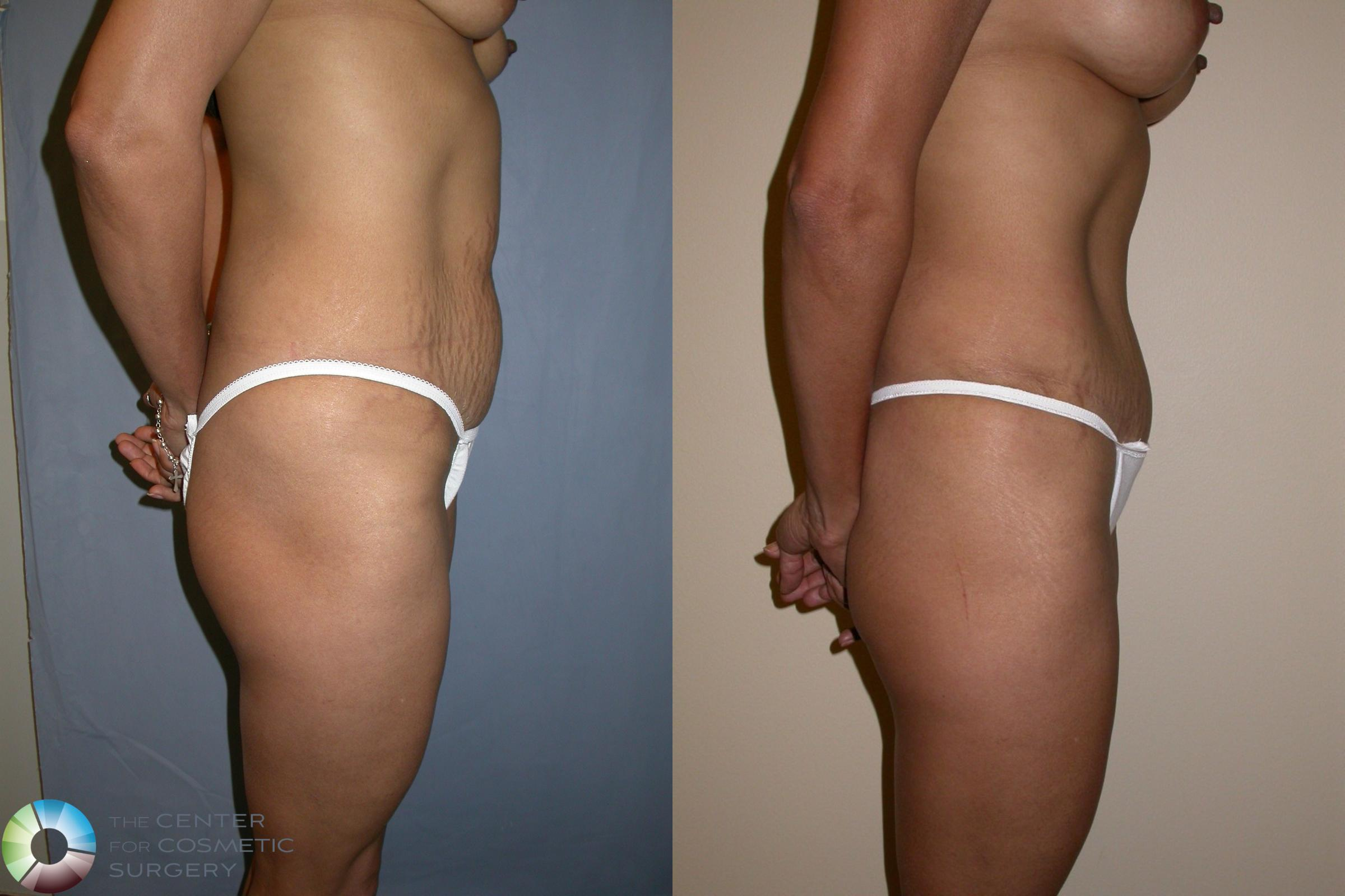 Tummy Tuck Case 195 Before & After View #3 | Golden, CO | The Center for Cosmetic Surgery