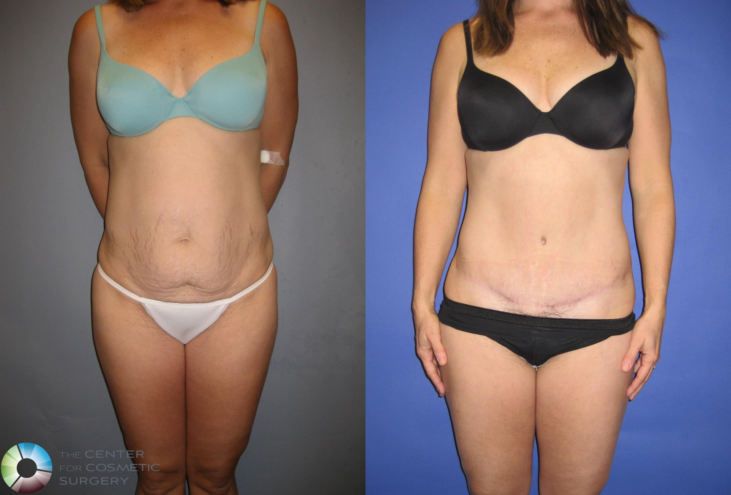 Tummy Tuck Case 203 Before & After View #1 | Golden, CO | The Center for Cosmetic Surgery