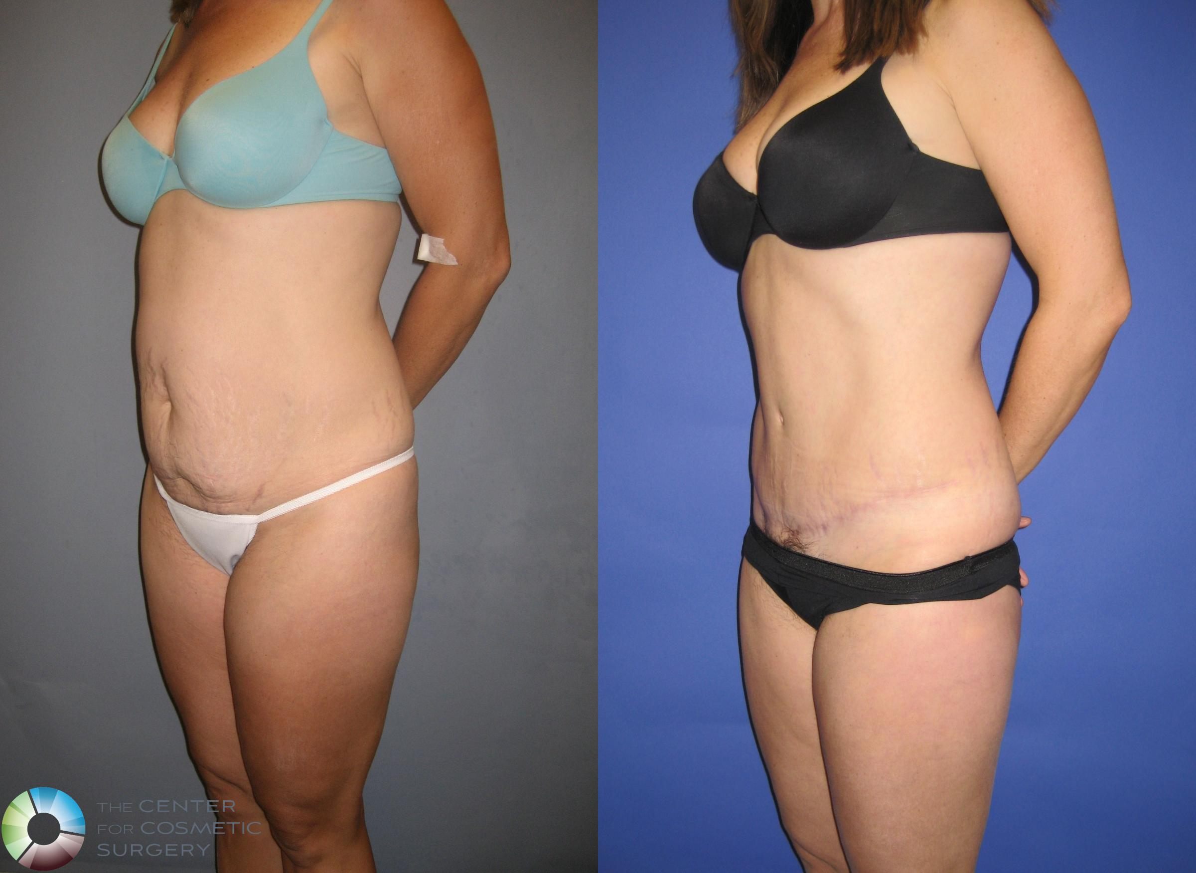 Tummy Tuck Case 203 Before & After View #2 | Golden, CO | The Center for Cosmetic Surgery