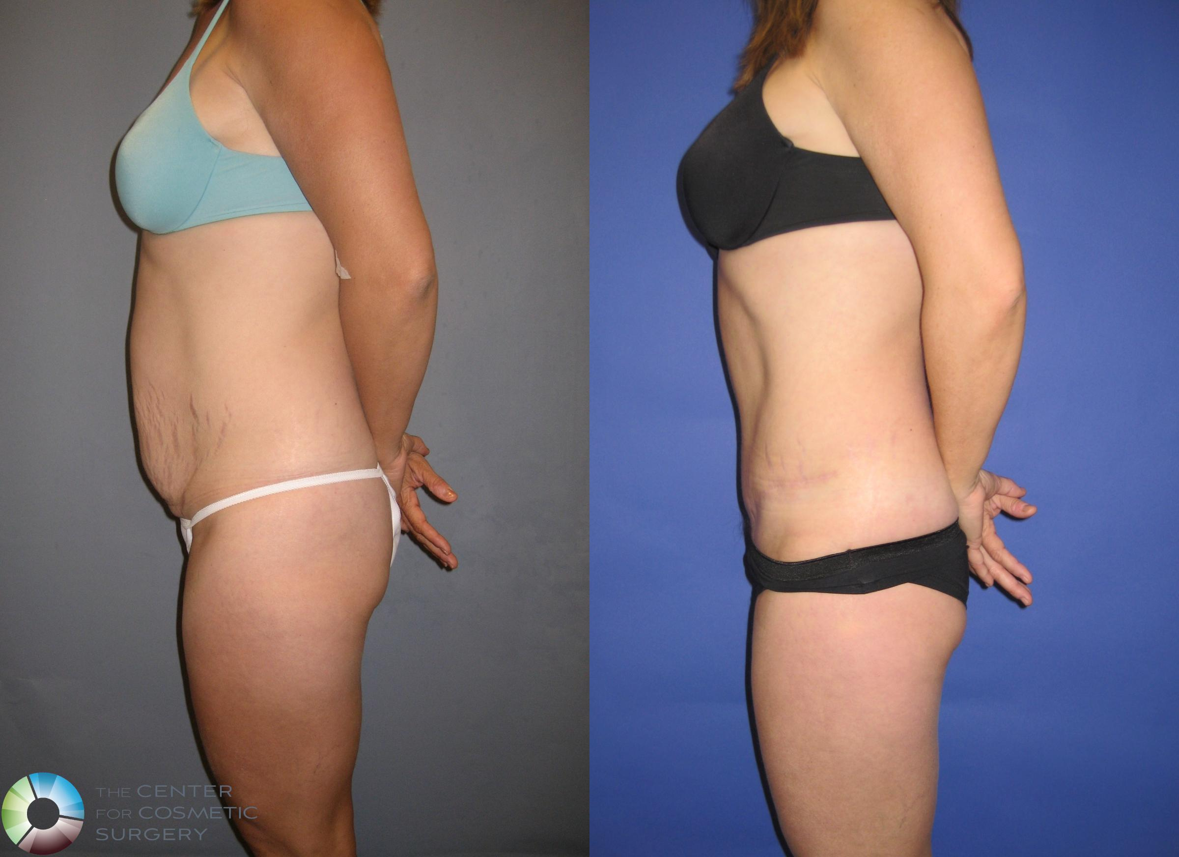 Tummy Tuck Case 203 Before & After View #3 | Golden, CO | The Center for Cosmetic Surgery
