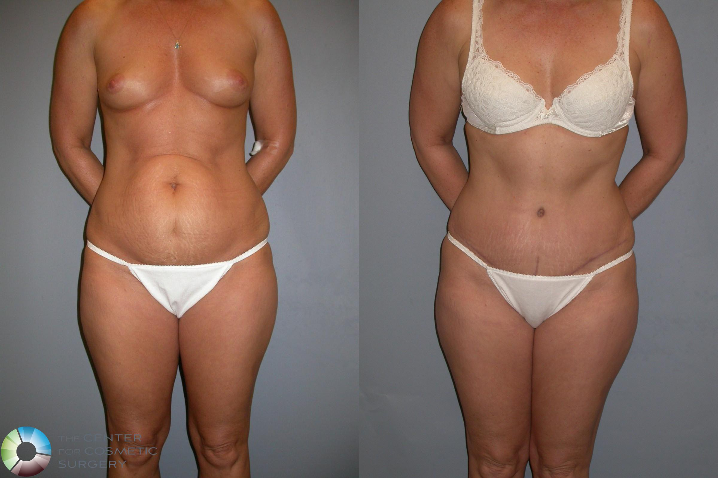 Tummy Tuck Case 212 Before & After View #1 | Golden, CO | The Center for Cosmetic Surgery