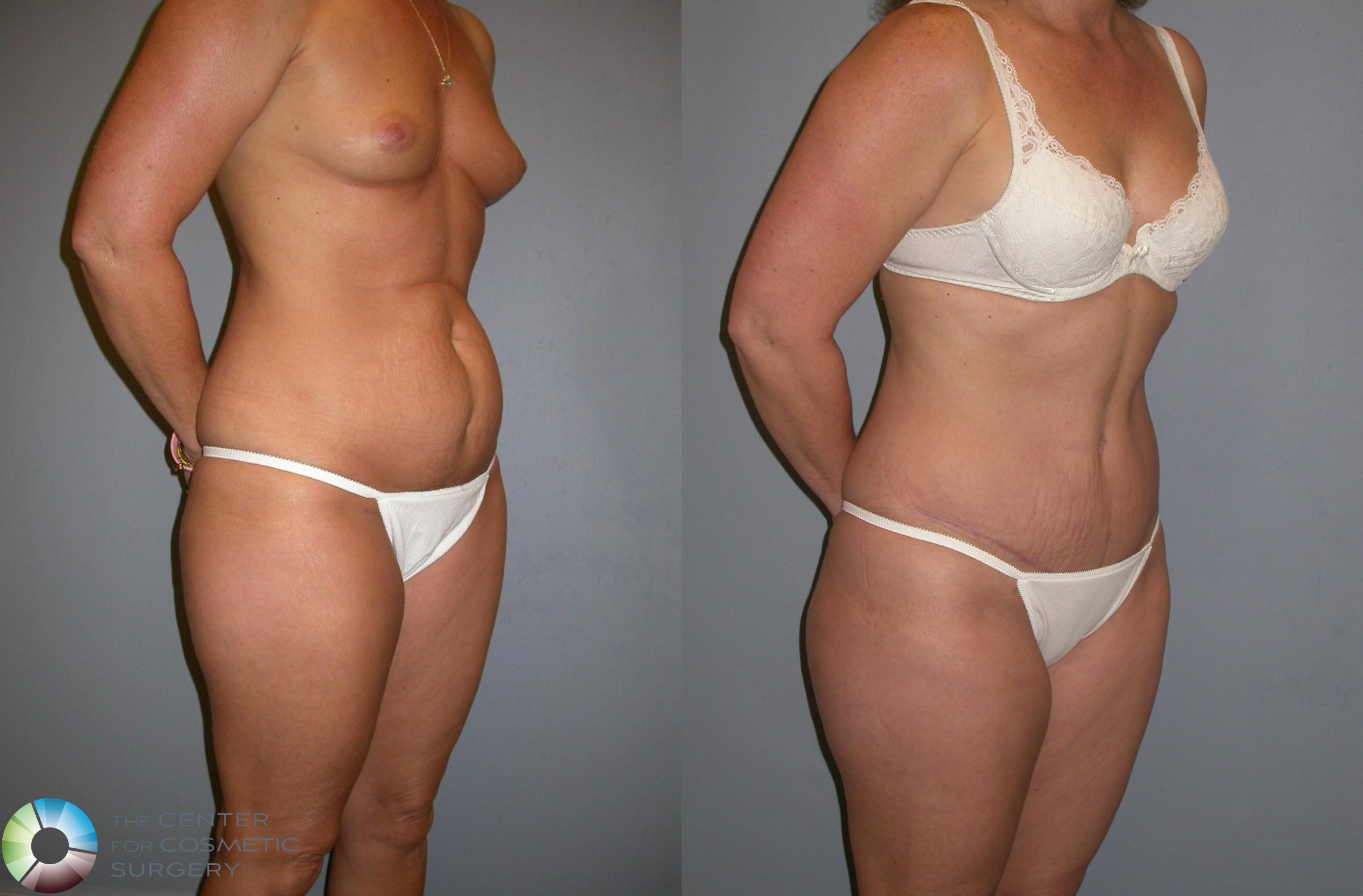 Tummy Tuck Case 212 Before & After View #2 | Golden, CO | The Center for Cosmetic Surgery