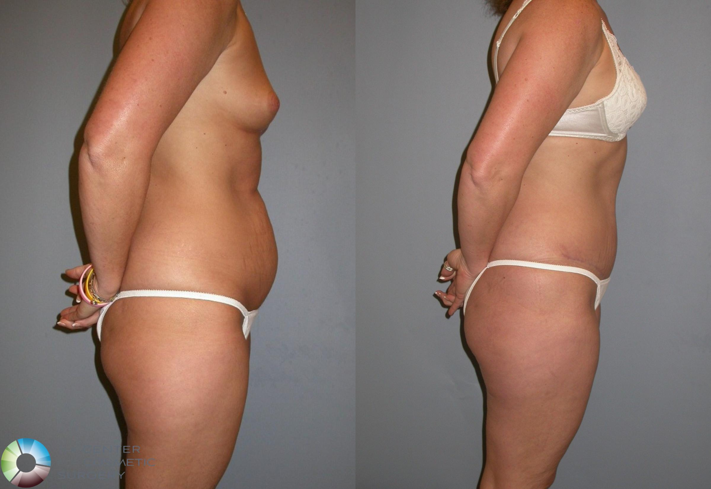 Tummy Tuck Case 212 Before & After View #3 | Golden, CO | The Center for Cosmetic Surgery