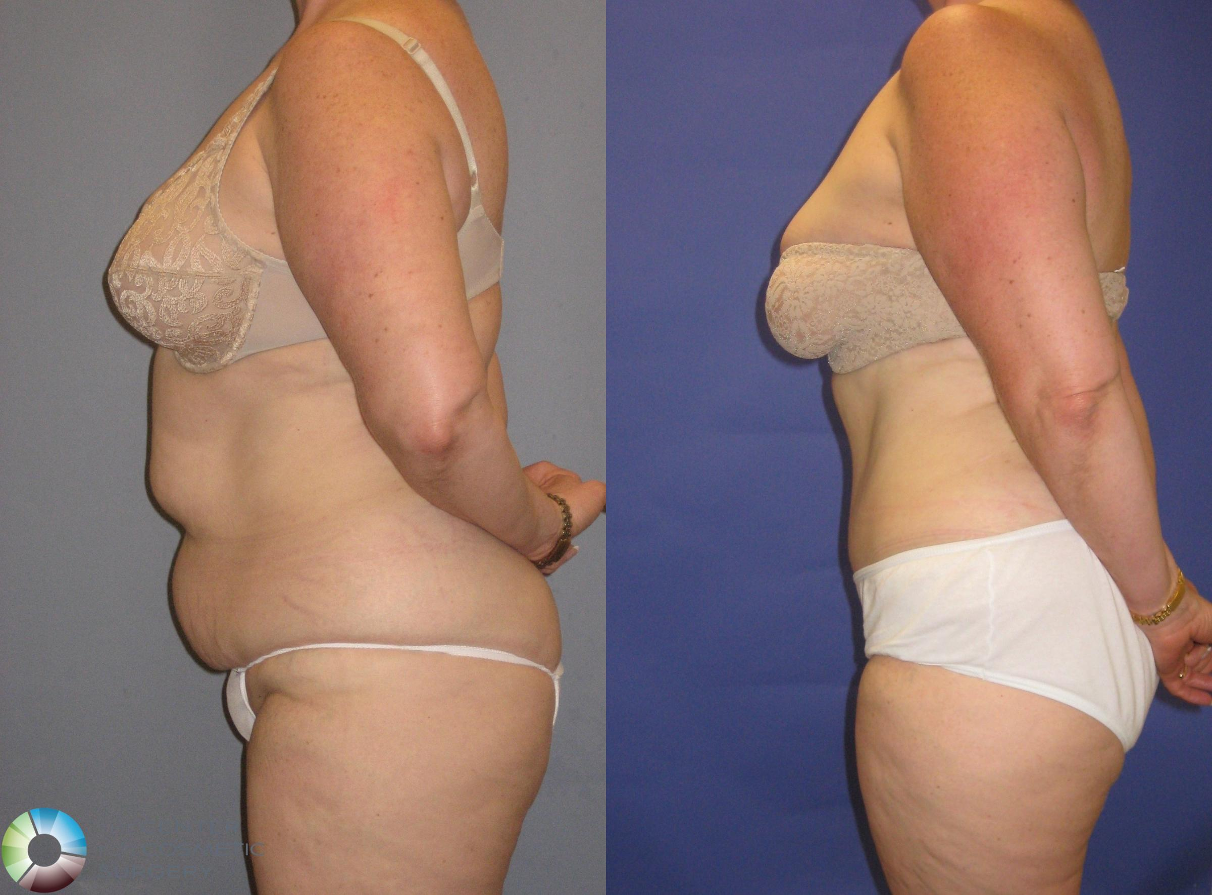 Tummy Tuck Case 248 Before & After View #1 | Golden, CO | The Center for Cosmetic Surgery
