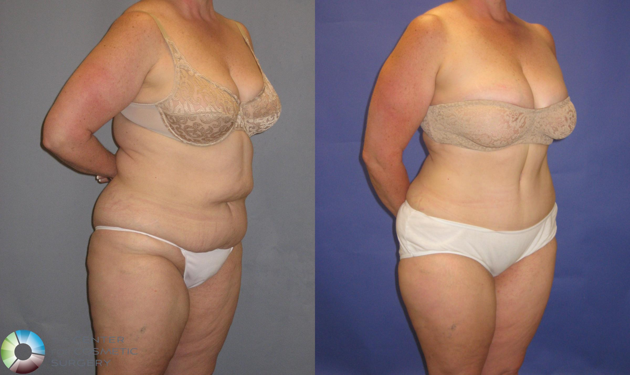 Tummy Tuck Case 248 Before & After View #2 | Golden, CO | The Center for Cosmetic Surgery