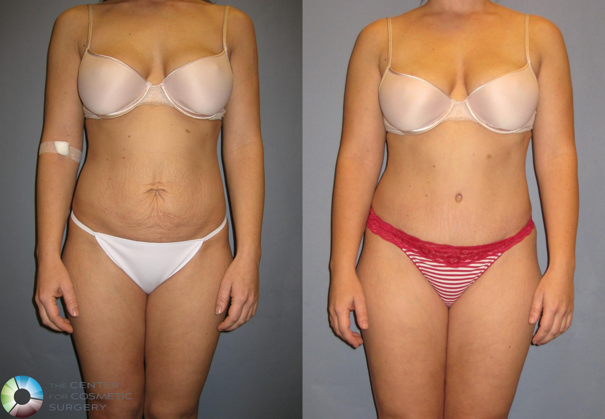 Tummy Tuck Case 271 Before & After View #1 | Golden, CO | The Center for Cosmetic Surgery