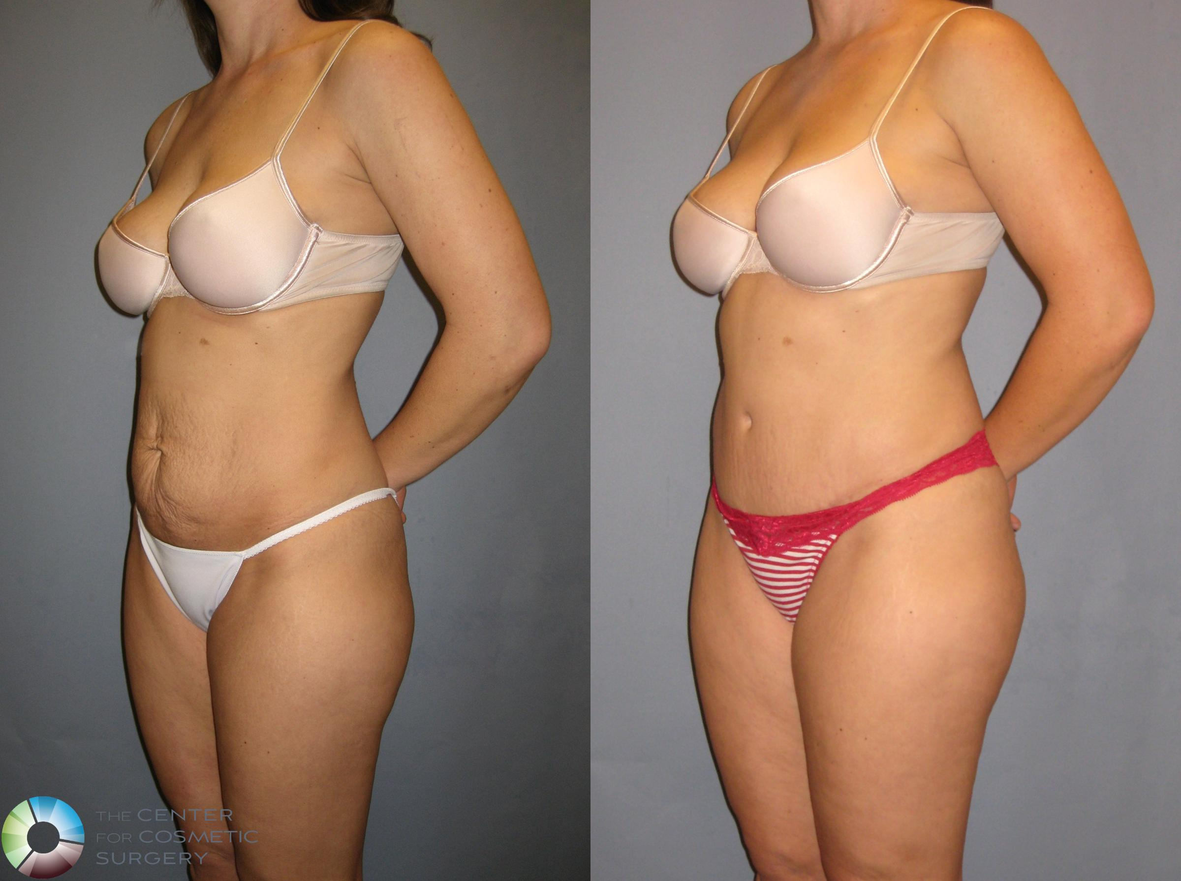 Tummy Tuck Case 271 Before & After View #2 | Golden, CO | The Center for Cosmetic Surgery