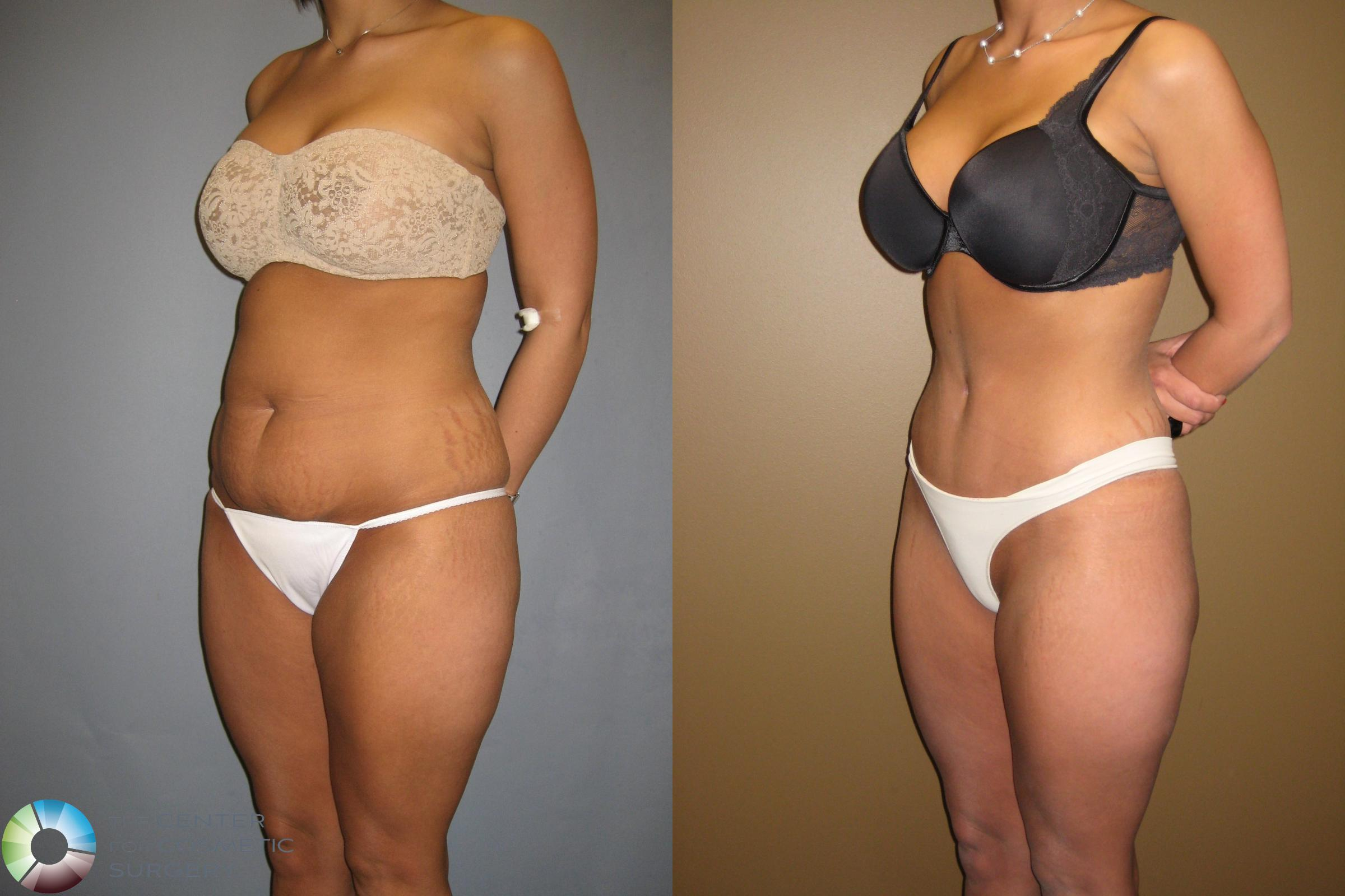 Tummy Tuck Case 302 Before & After View #1 | Golden, CO | The Center for Cosmetic Surgery