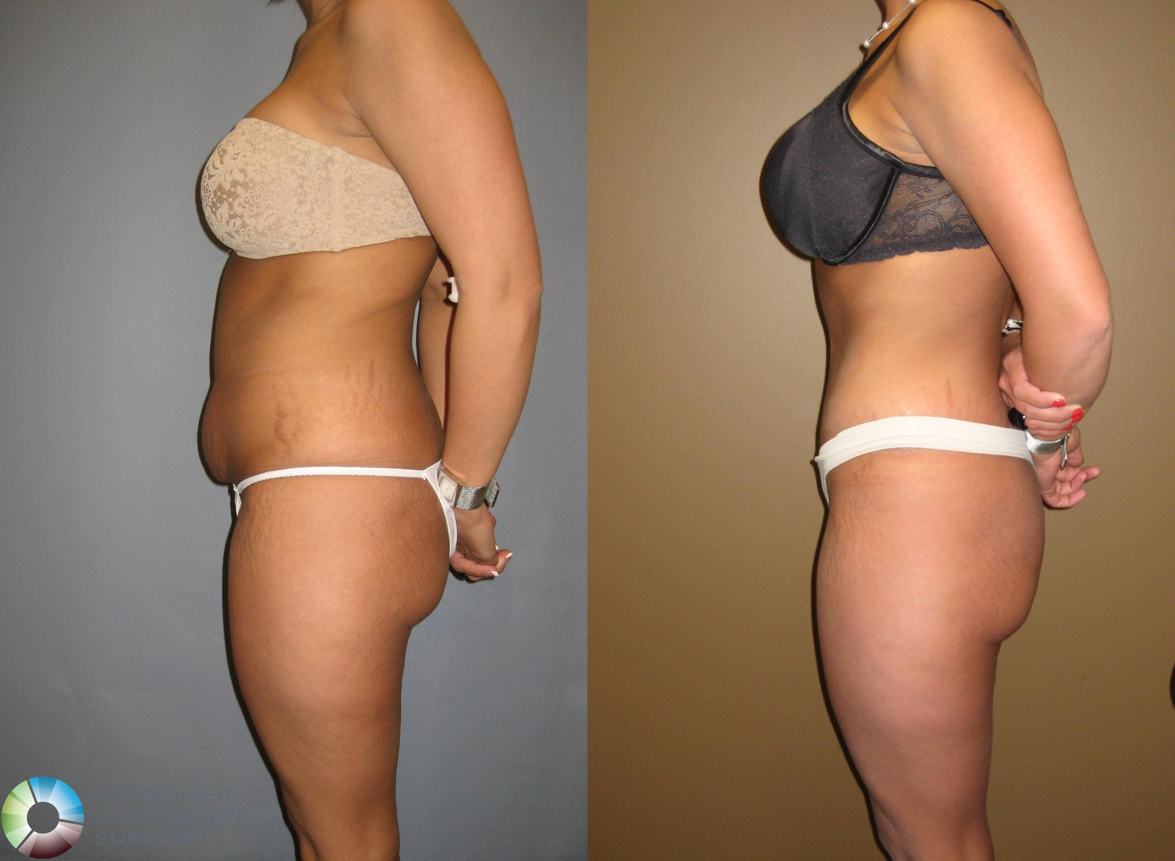 Tummy Tuck Case 302 Before & After View #2 | Golden, CO | The Center for Cosmetic Surgery