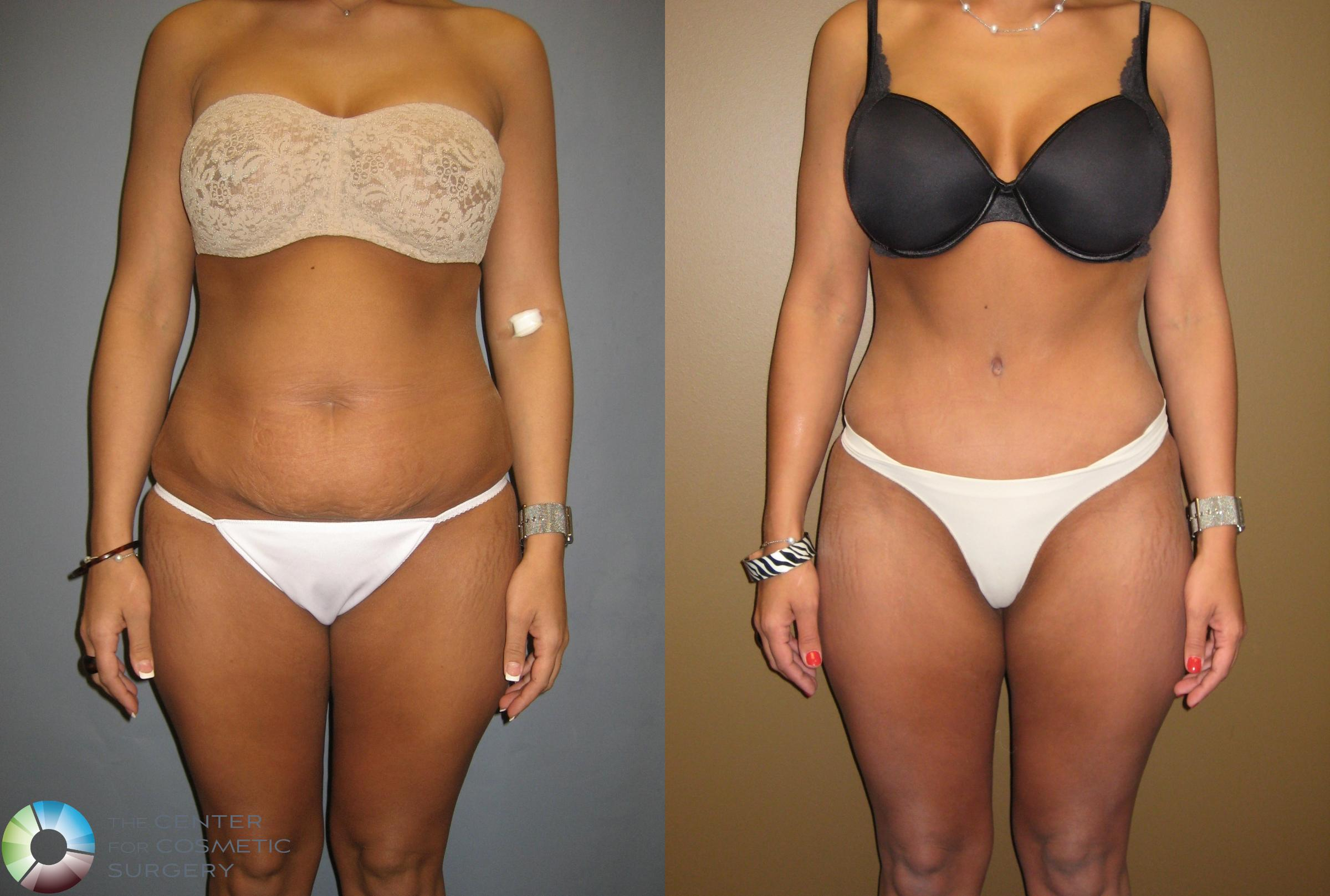 Tummy Tuck Case 302 Before & After View #3 | Golden, CO | The Center for Cosmetic Surgery