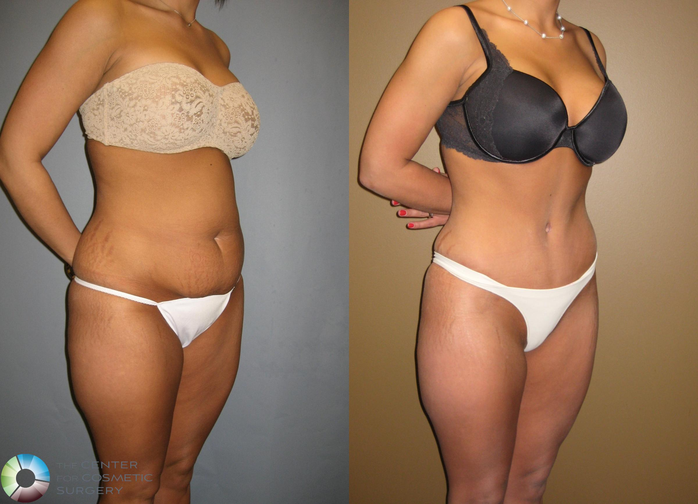 Tummy Tuck Case 302 Before & After View #4 | Golden, CO | The Center for Cosmetic Surgery