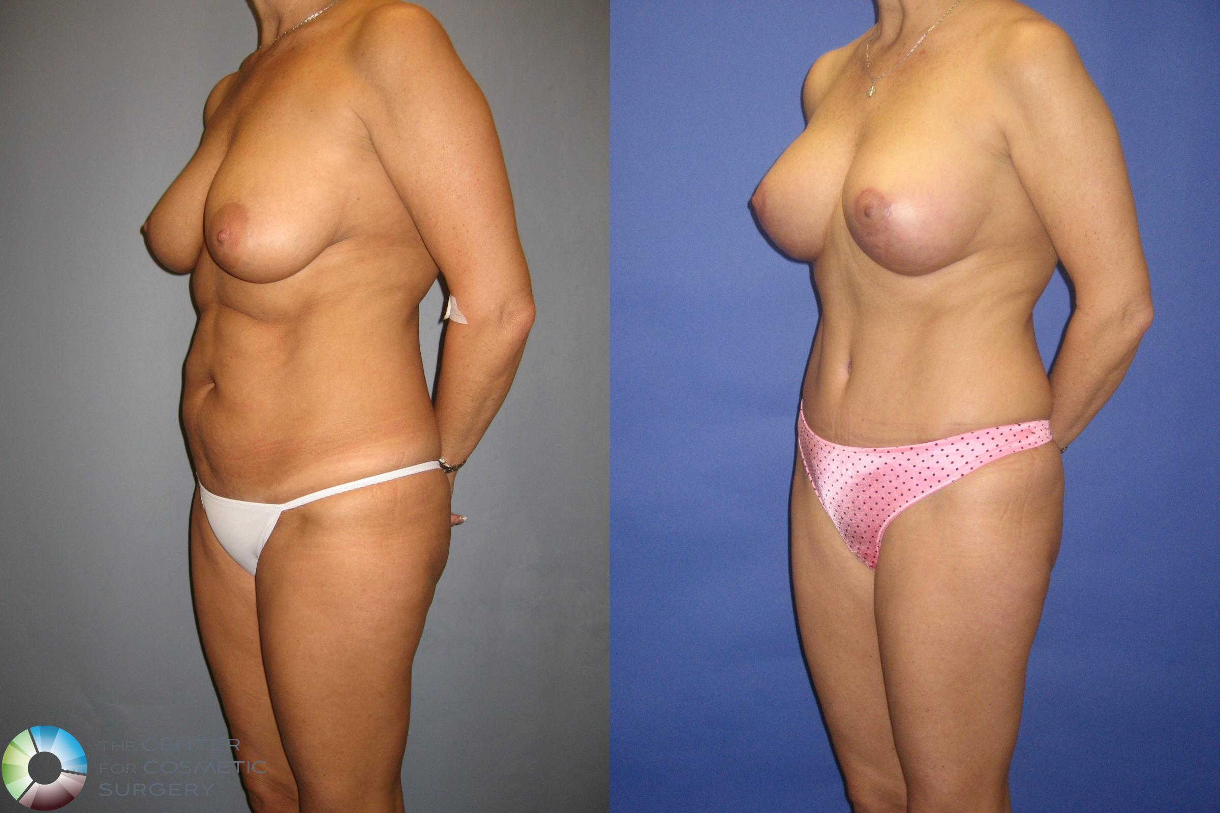 Tummy Tuck Case 305 Before & After View #1 | Golden, CO | The Center for Cosmetic Surgery