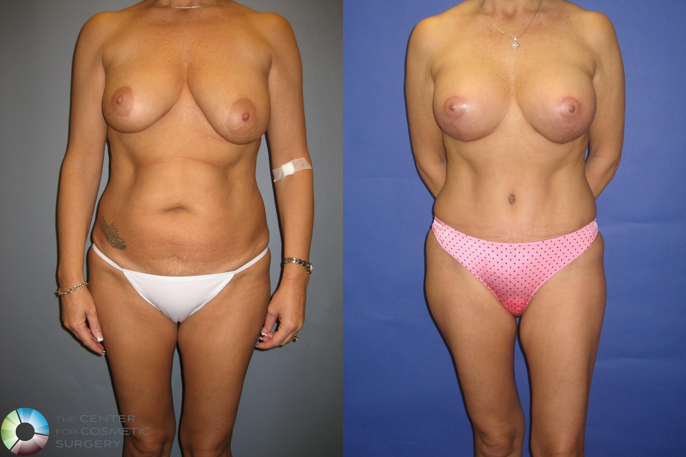 Tummy Tuck Case 305 Before & After View #2 | Golden, CO | The Center for Cosmetic Surgery