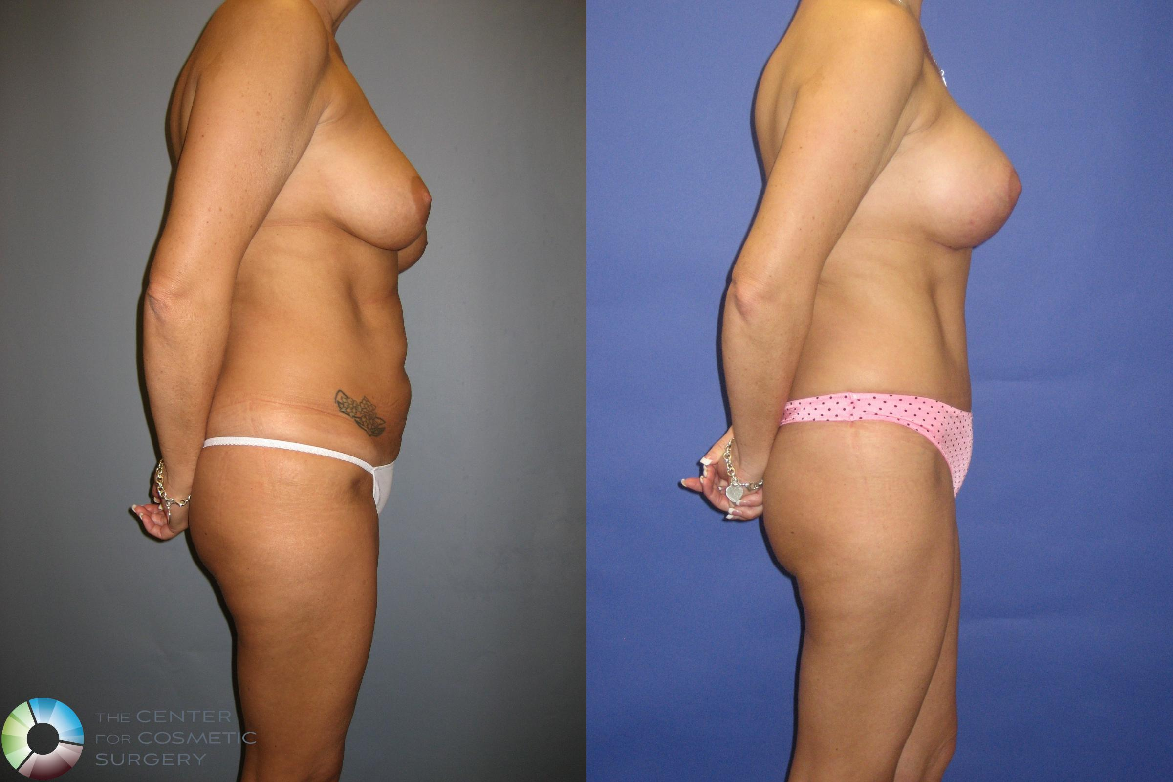 Tummy Tuck Case 305 Before & After View #3 | Golden, CO | The Center for Cosmetic Surgery