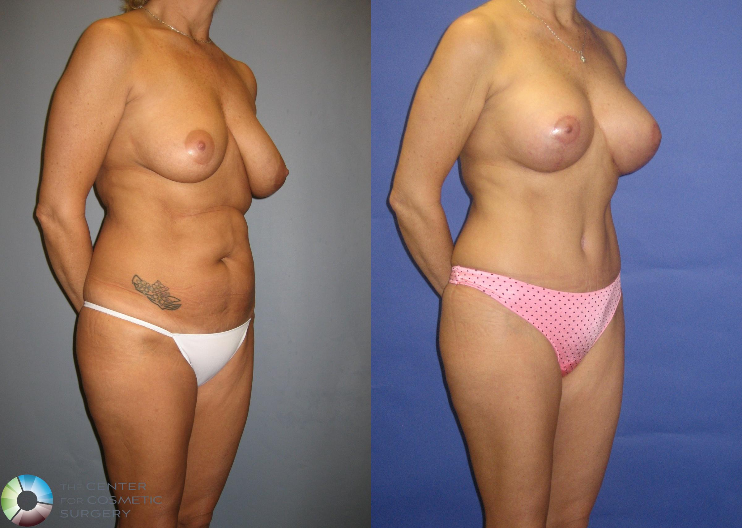 Tummy Tuck Case 305 Before & After View #4 | Golden, CO | The Center for Cosmetic Surgery