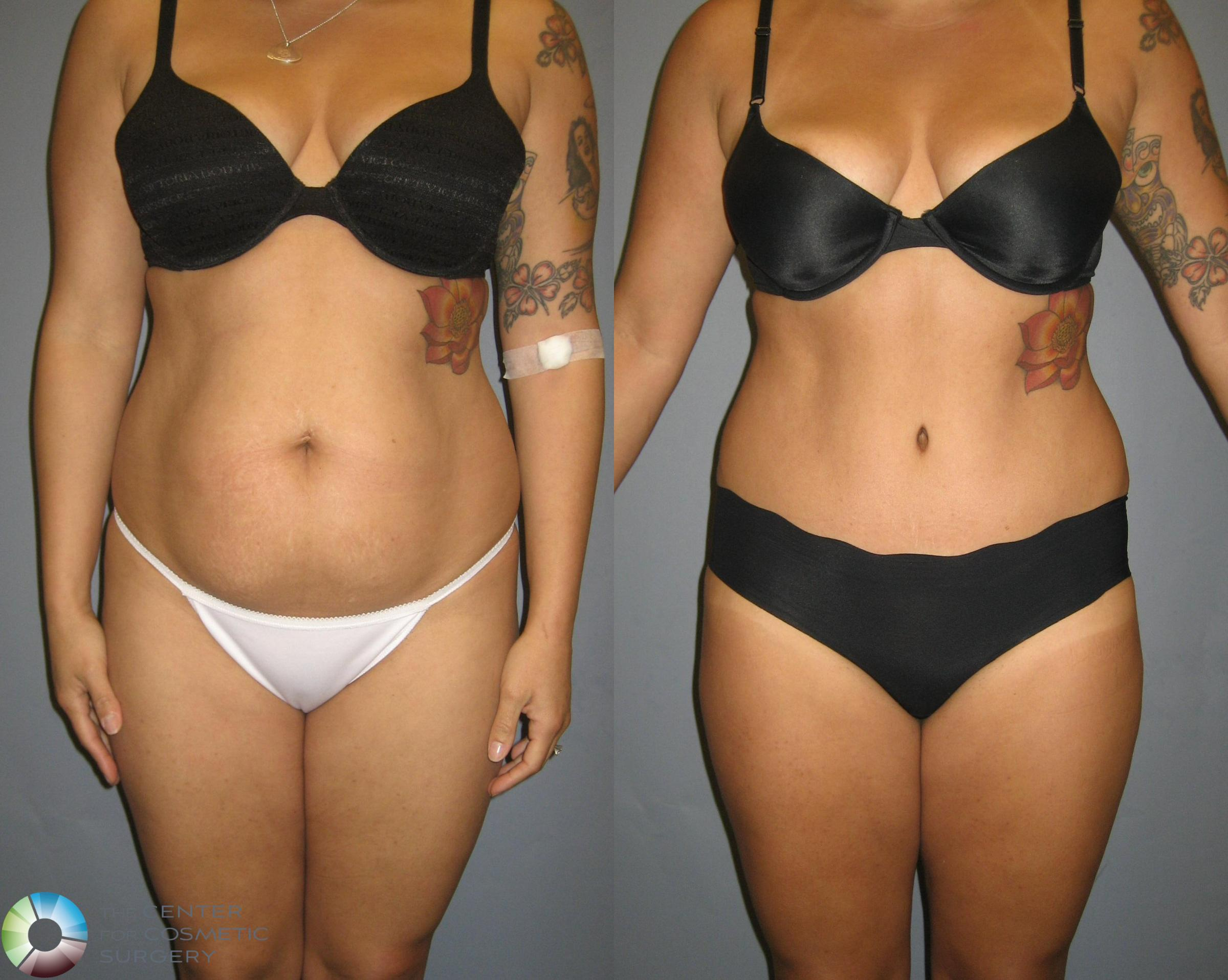 Tummy Tuck Case 321 Before & After View #1 | Golden, CO | The Center for Cosmetic Surgery