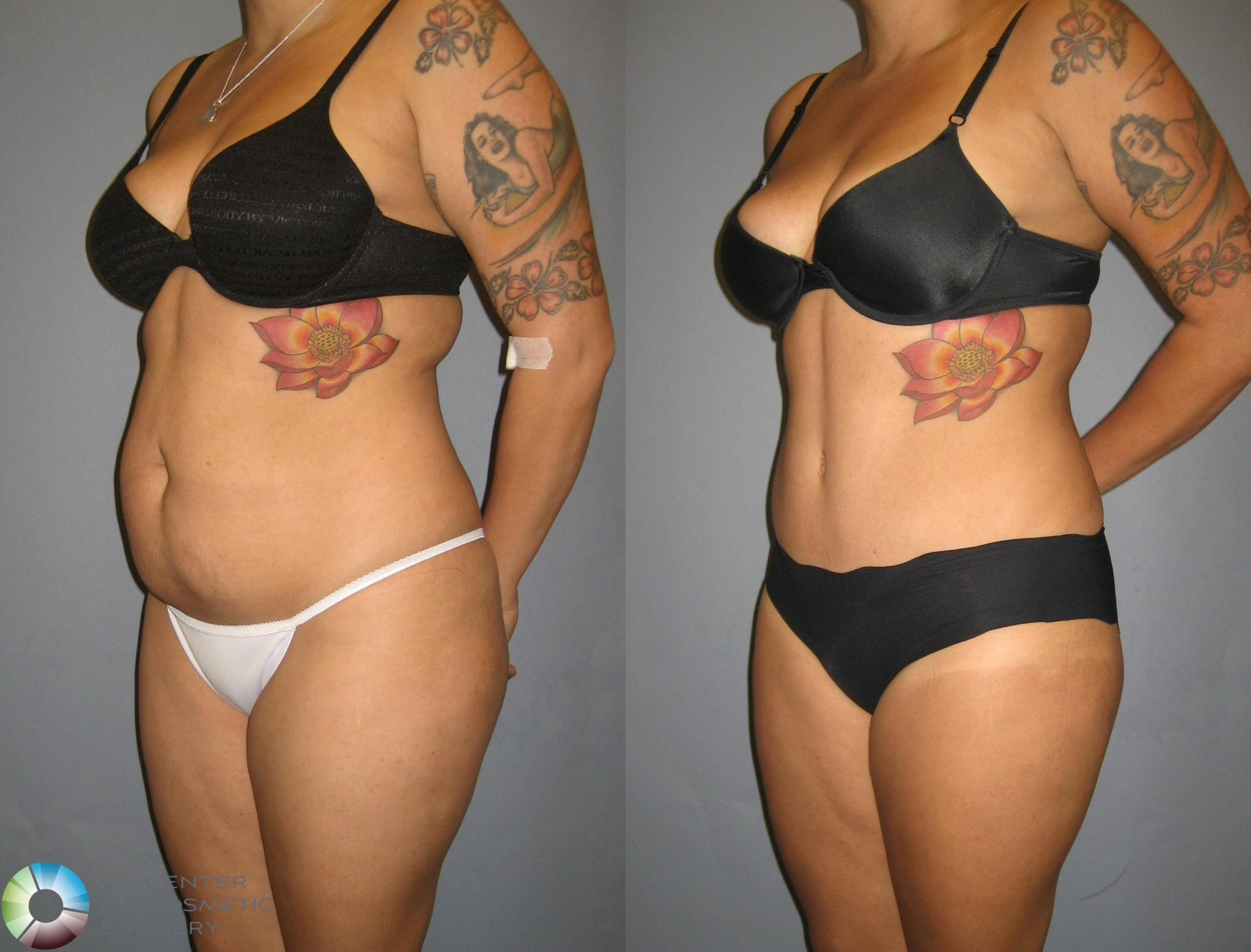 Tummy Tuck Case 321 Before & After View #2 | Golden, CO | The Center for Cosmetic Surgery