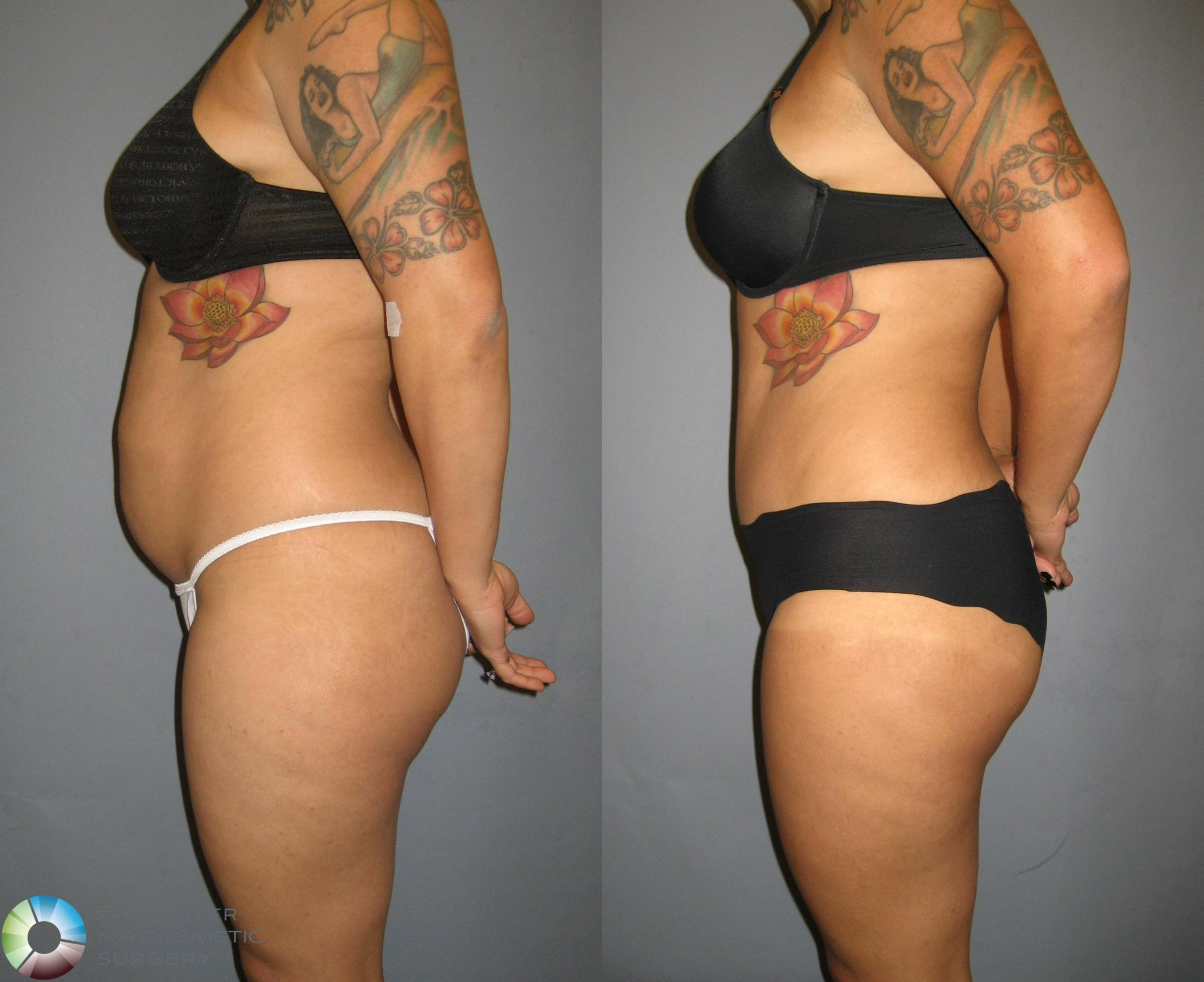 Tummy Tuck Case 321 Before & After View #3 | Golden, CO | The Center for Cosmetic Surgery