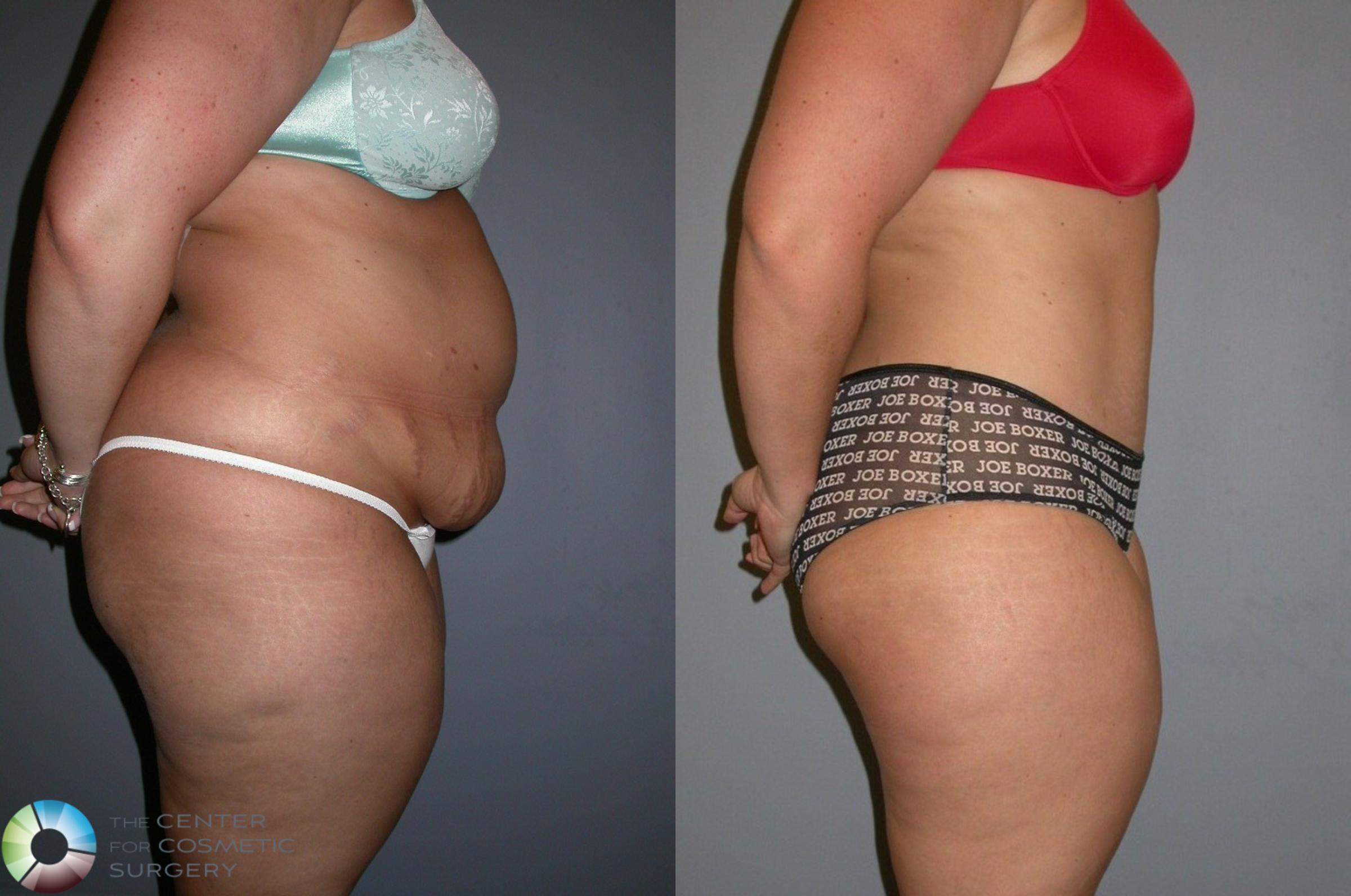 Tummy Tuck Case 323 Before & After View #1 | Golden, CO | The Center for Cosmetic Surgery