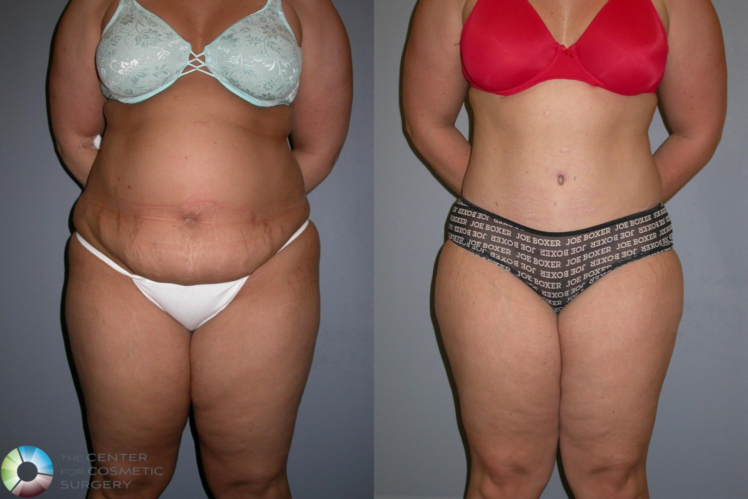 Tummy Tuck Case 323 Before & After View #2 | Golden, CO | The Center for Cosmetic Surgery