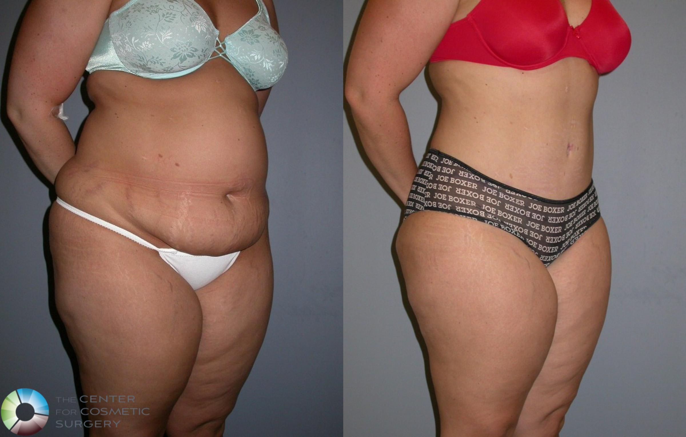 Tummy Tuck Case 323 Before & After View #3 | Golden, CO | The Center for Cosmetic Surgery