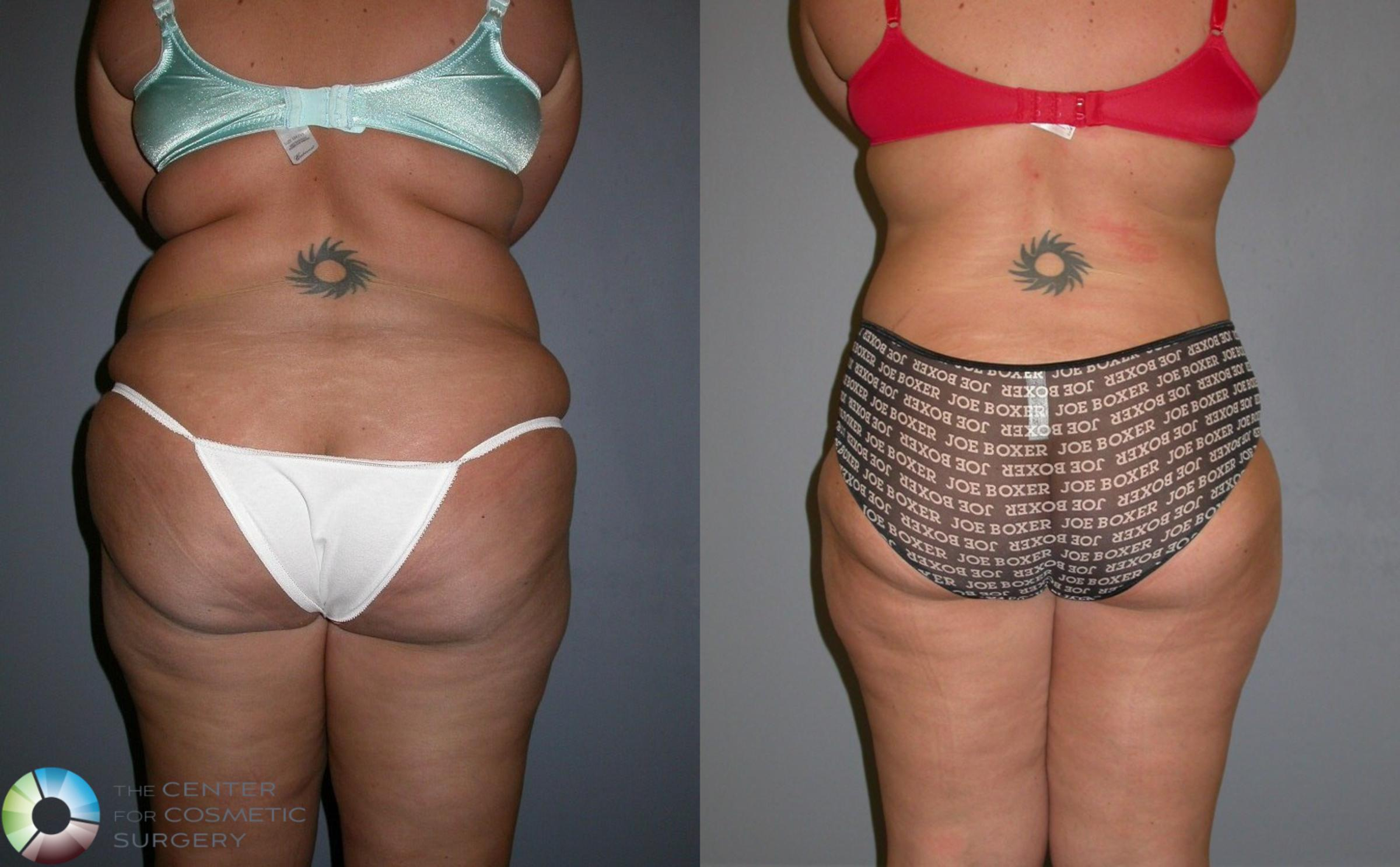 Tummy Tuck Case 323 Before & After View #4 | Golden, CO | The Center for Cosmetic Surgery