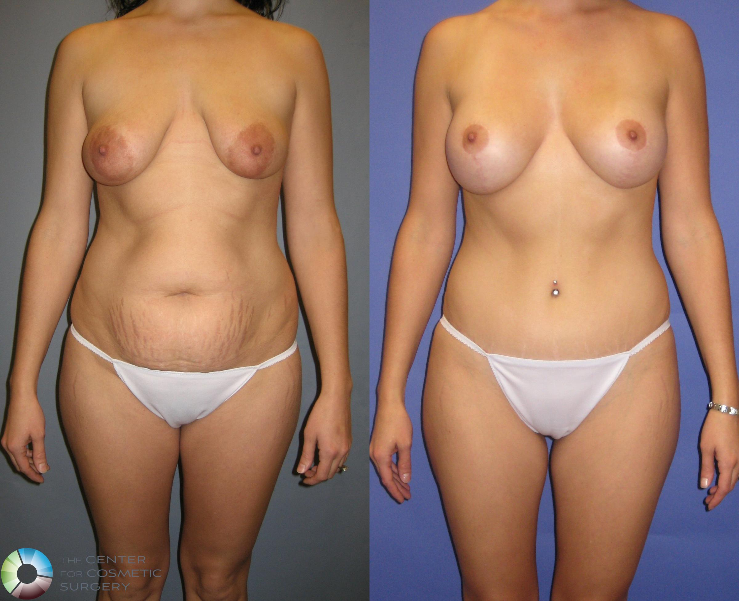 Tummy Tuck Case 328 Before & After View #1 | Golden, CO | The Center for Cosmetic Surgery