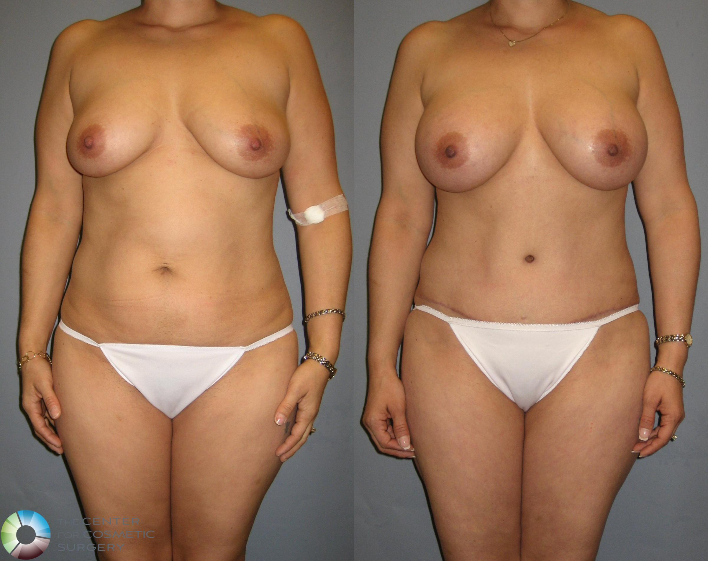 Tummy Tuck Case 329 Before & After View #1 | Golden, CO | The Center for Cosmetic Surgery