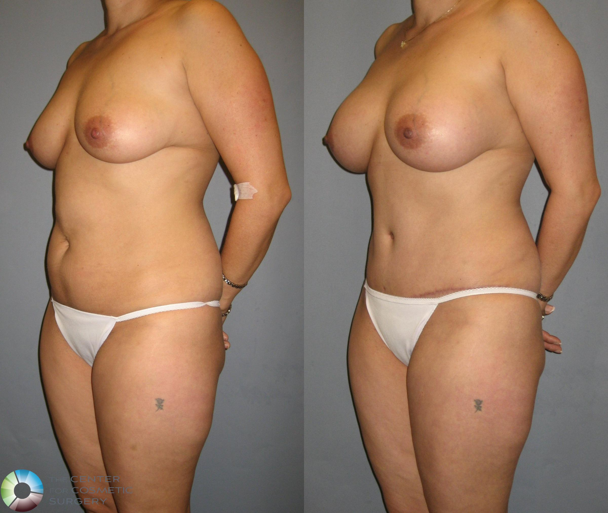 Tummy Tuck Case 329 Before & After View #2 | Golden, CO | The Center for Cosmetic Surgery