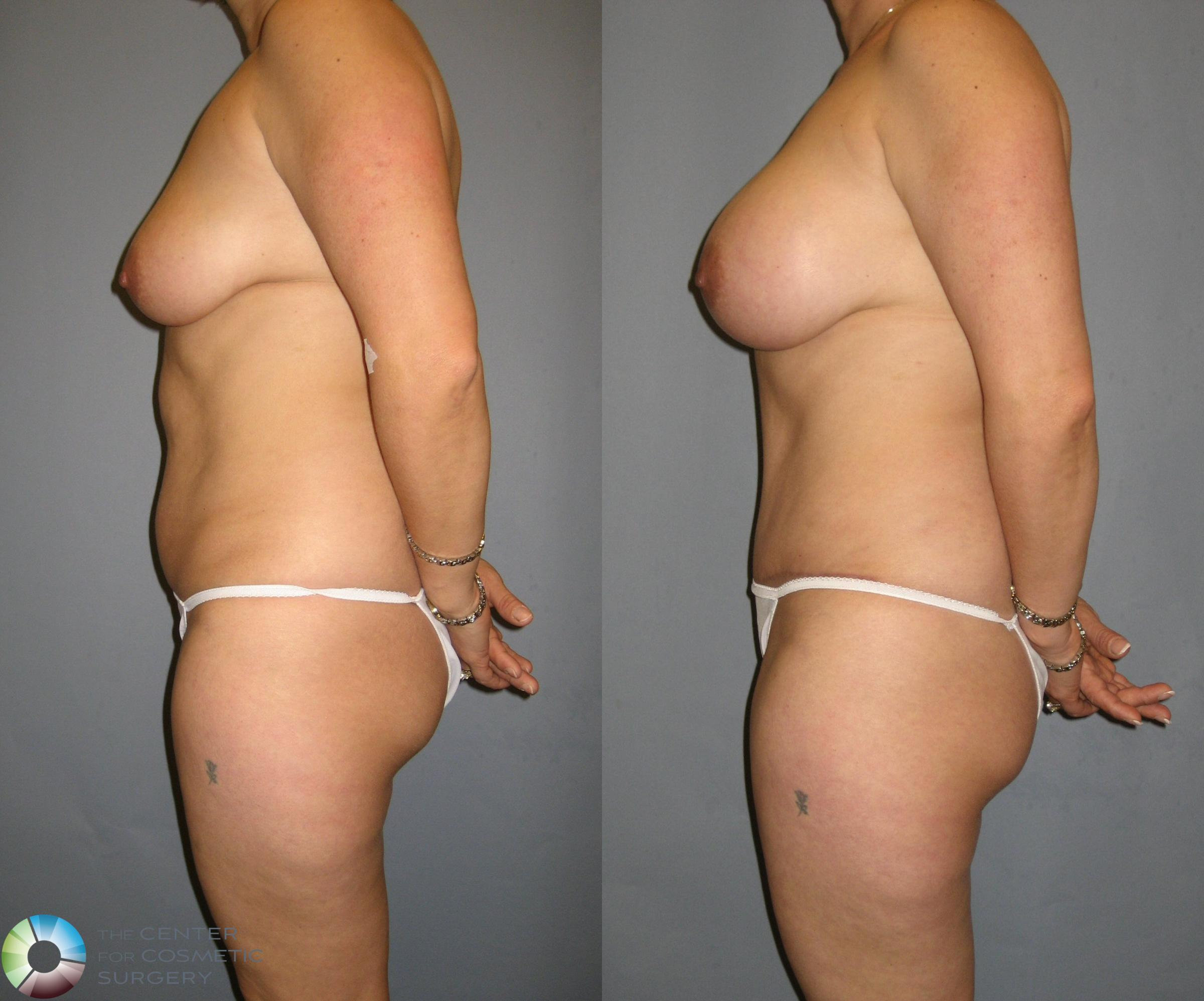 Tummy Tuck Case 329 Before & After View #3 | Golden, CO | The Center for Cosmetic Surgery