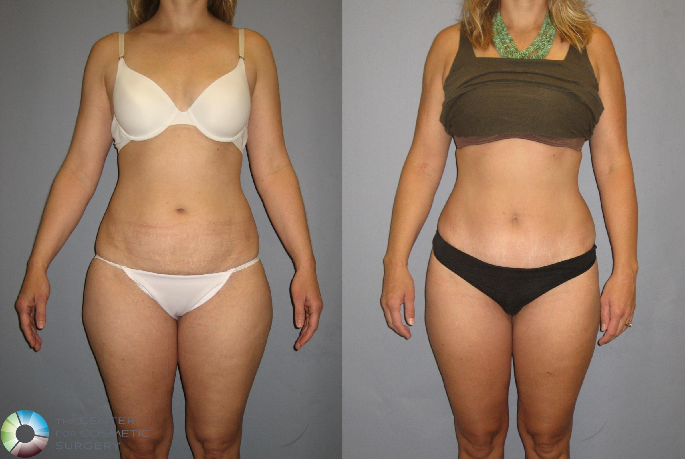 Tummy Tuck Case 381 Before & After View #1 | Golden, CO | The Center for Cosmetic Surgery