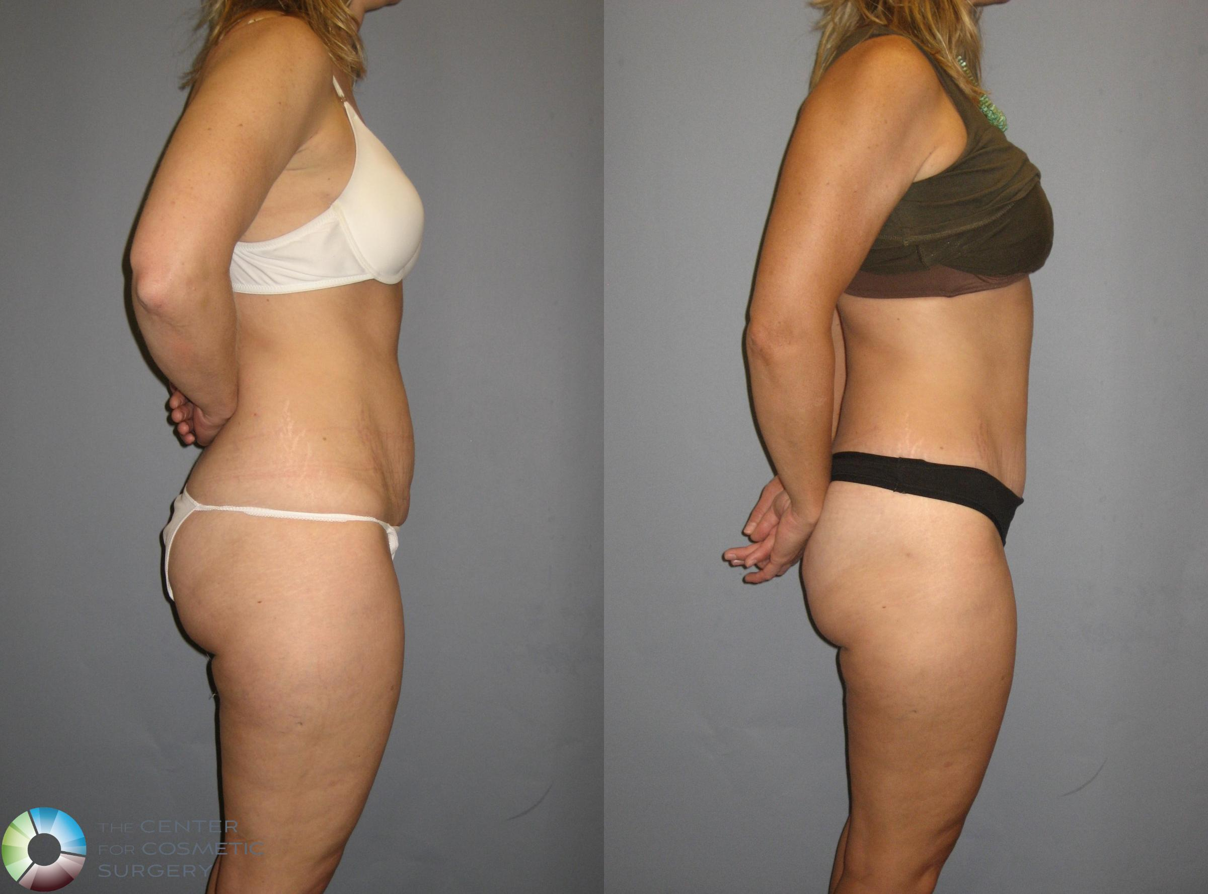 Tummy Tuck Case 381 Before & After View #2 | Golden, CO | The Center for Cosmetic Surgery