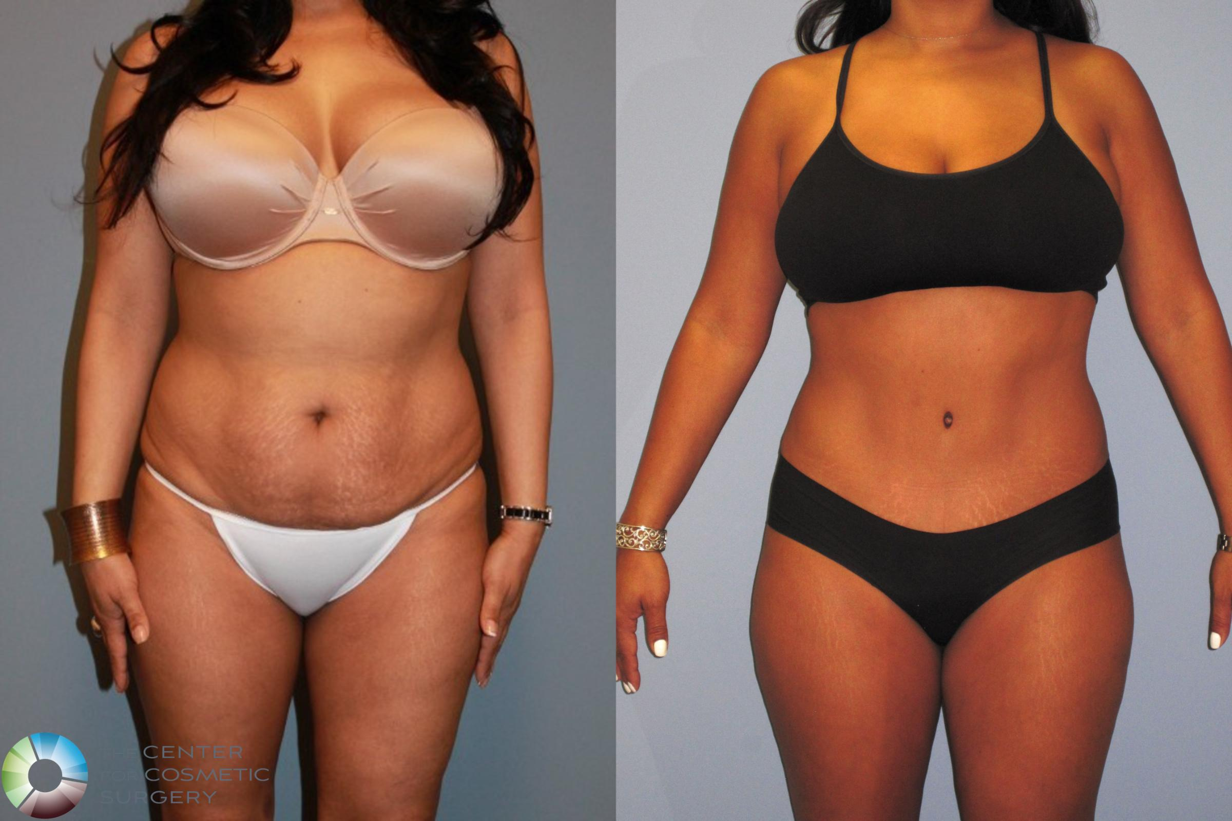 Tummy Tuck Case 487 Before & After View #1 | Golden, CO | The Center for Cosmetic Surgery